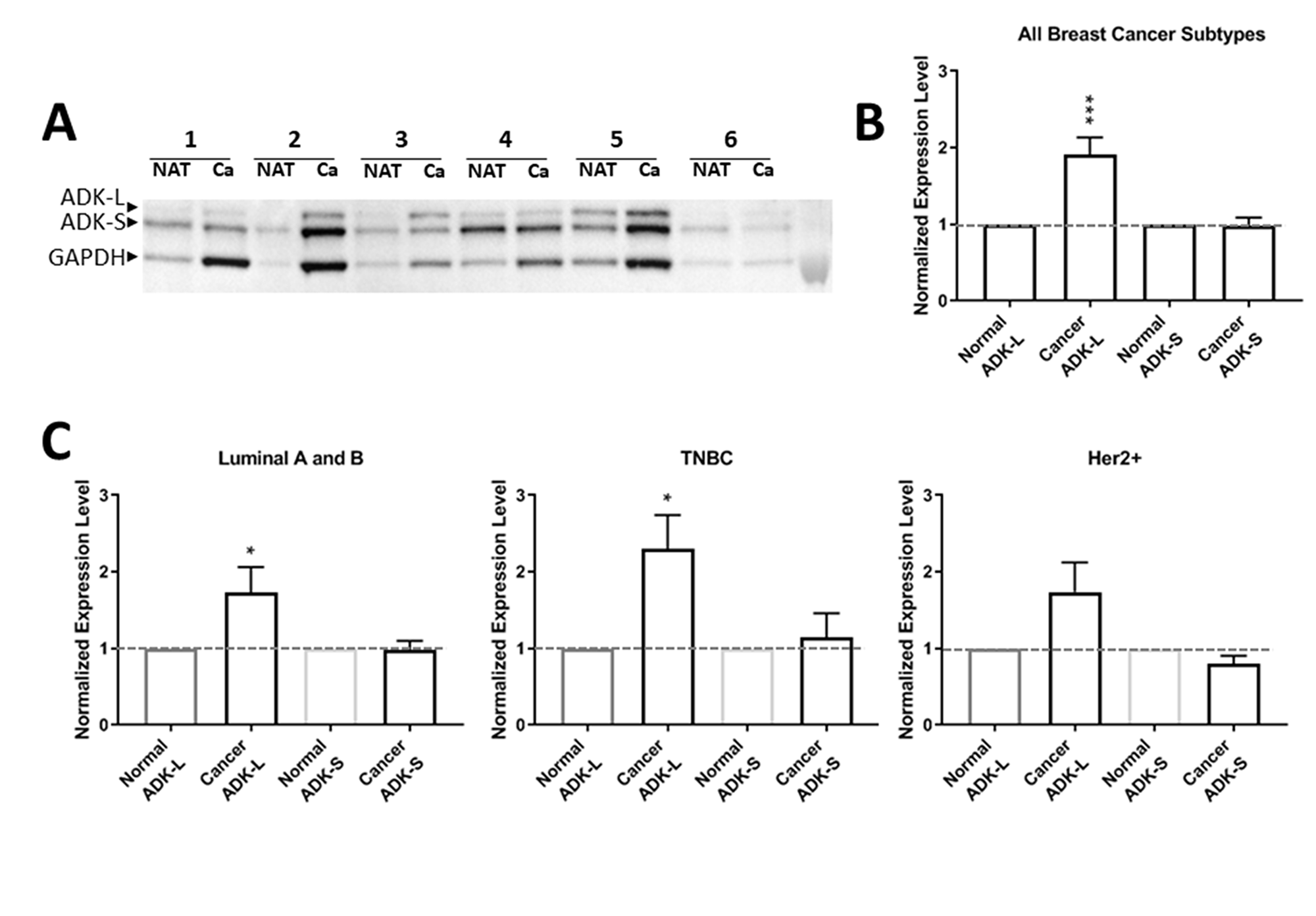 Expression profiles of ADK isoforms in cancer tumor versus NAT from 46 patients.