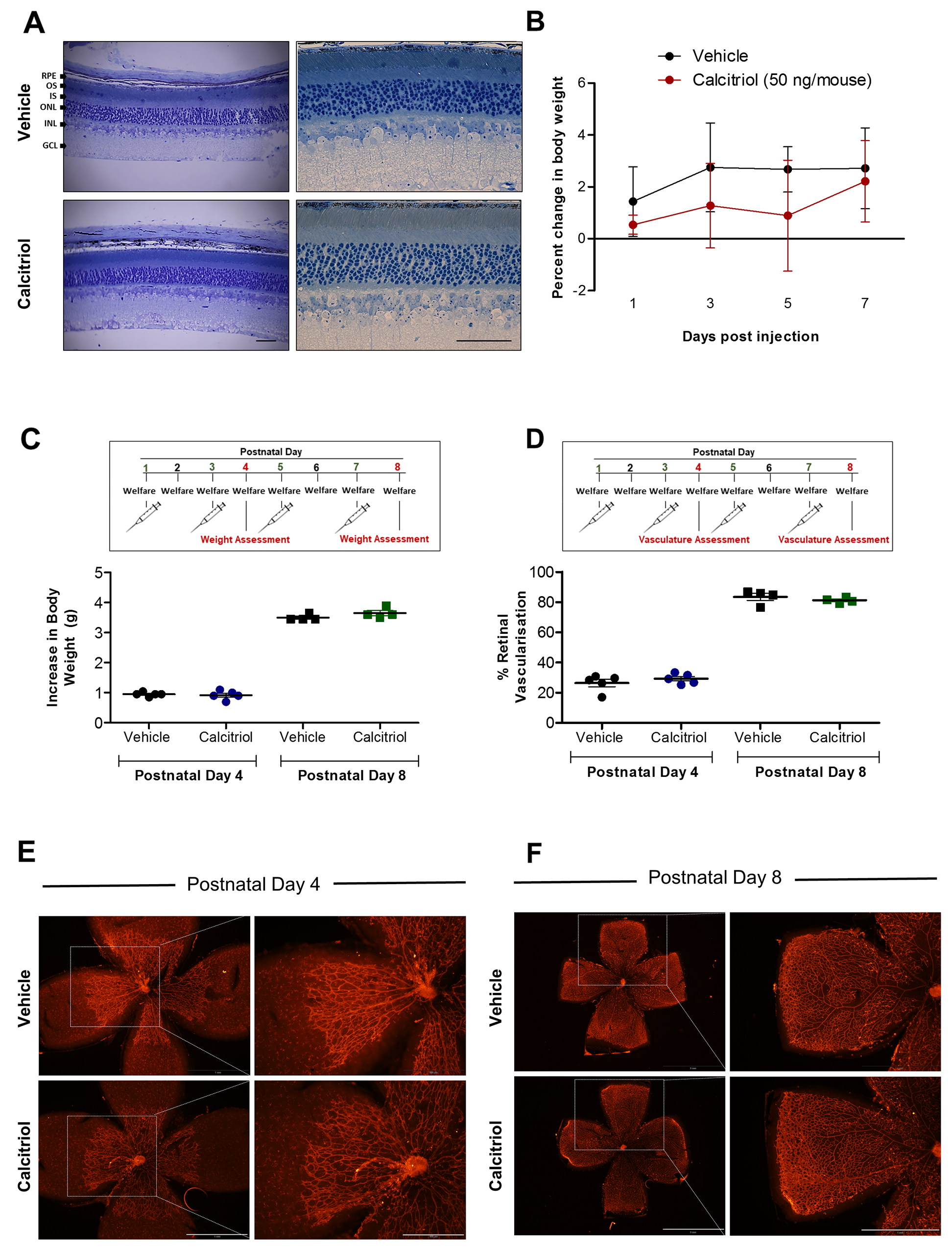 No ocular morphological defects were identified in mice treated with calcitriol and calcitriol treatment on alternating days does not attenuate superficial retinal vasculature development in C57BL/6J mice.