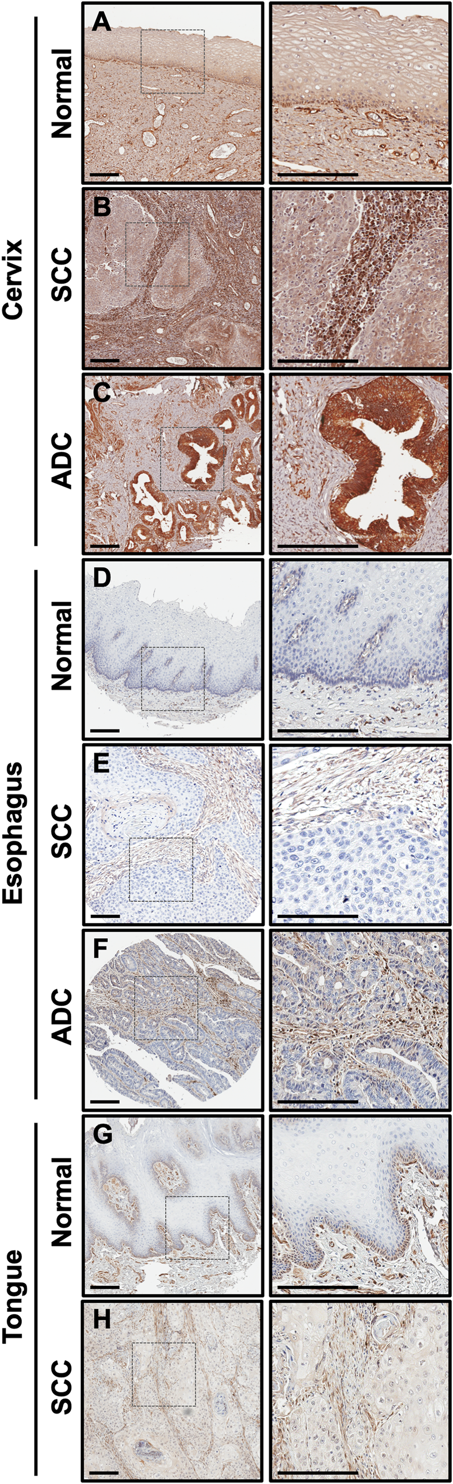 CLIC4 expression is low in epithelia of multiple squamous cancers but elevated in stromal cells.