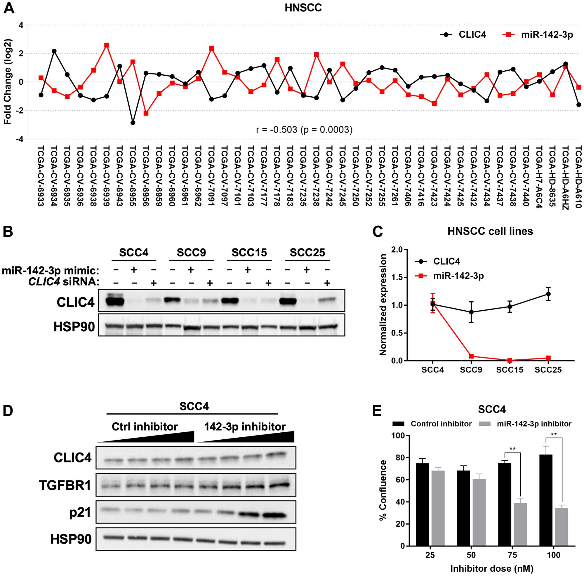 miR-142-3p modulates CLIC4 expression in HNSCC.