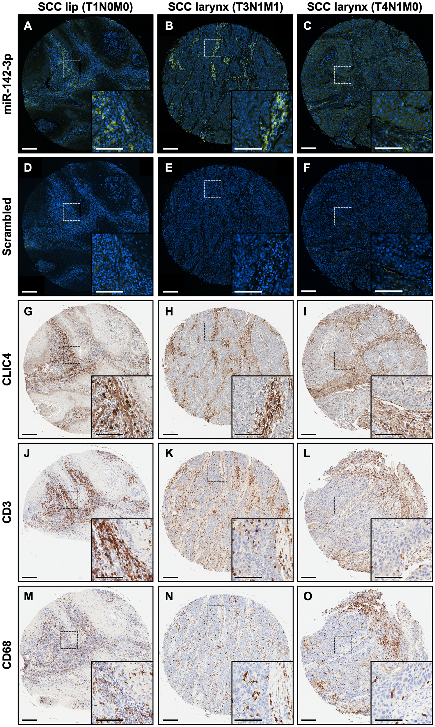 miR-142-3p is expressed in the stromal compartment along with immune cells in HNSCC.