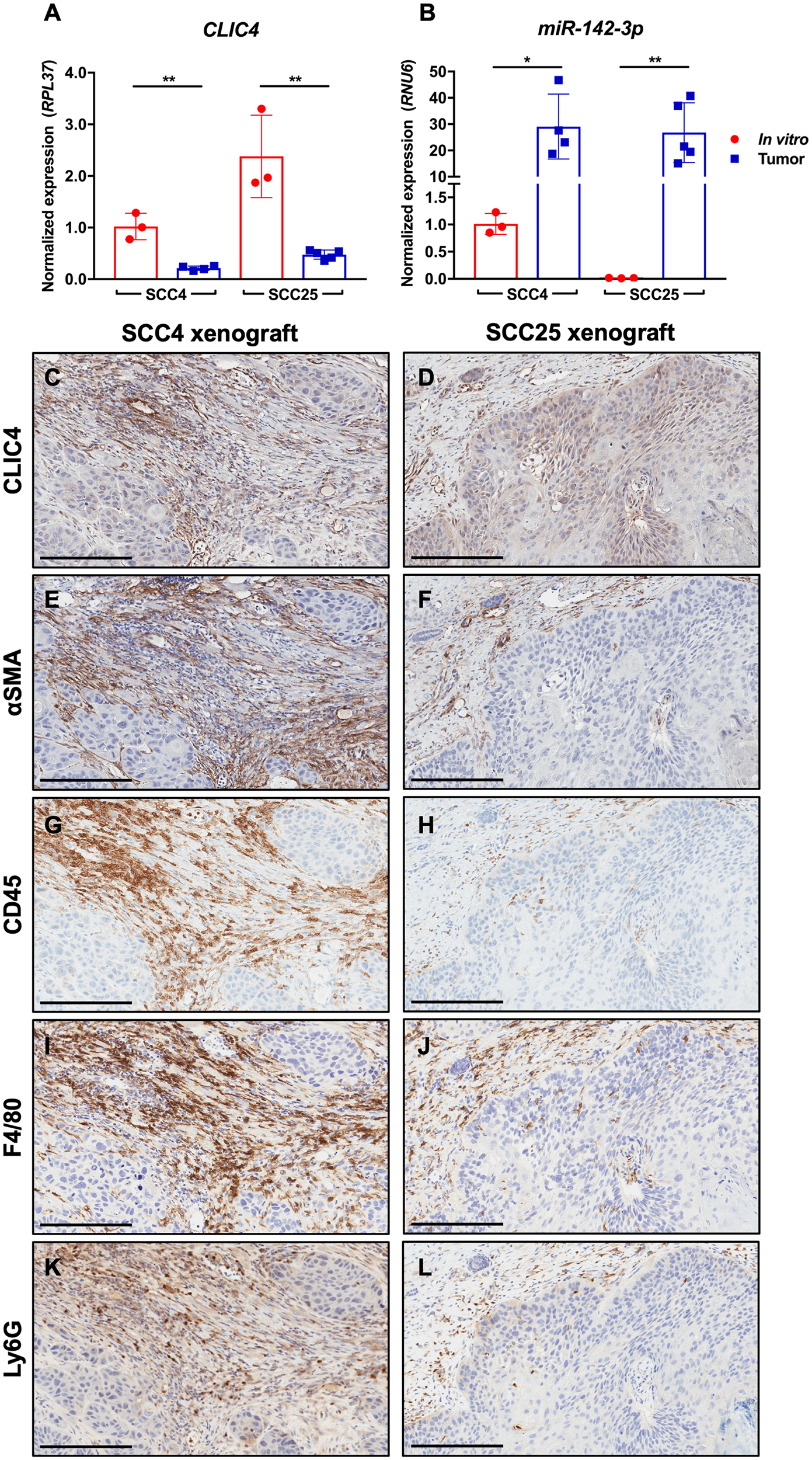 CLIC4 is downregulated in SCC xenografts concurrent with immune cell infiltration and miR-142-3p upregulation.