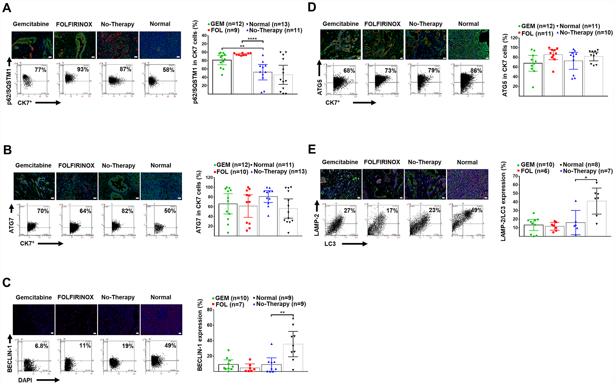 Human pancreatic normal and cancer tissues: expression of autophagy markers.