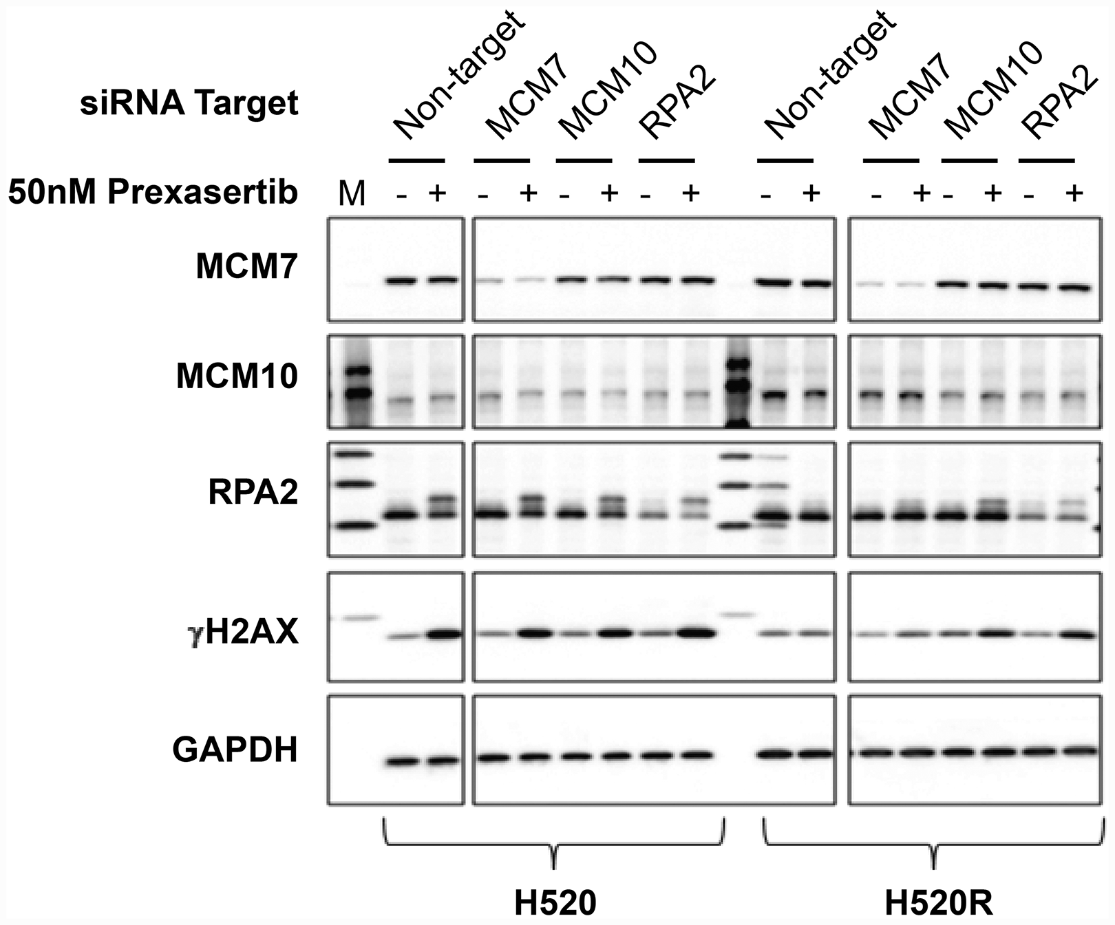 Effect of key replication fork gene knockdown on markers for replication stress and DNA damage measured in extracts derived from parental and prexasertib-resistant NCI-H520 tumor lines.