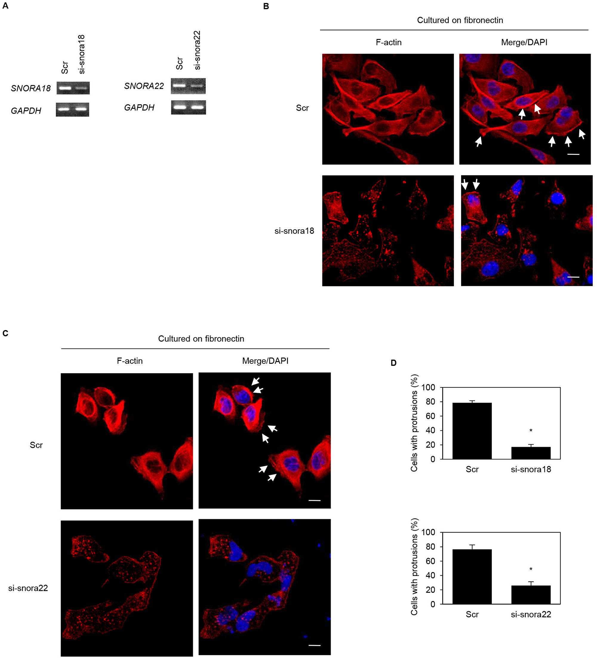 Roles of KHSRP-bound snoRNAs in forming cell protrusions in S2-013 cells.