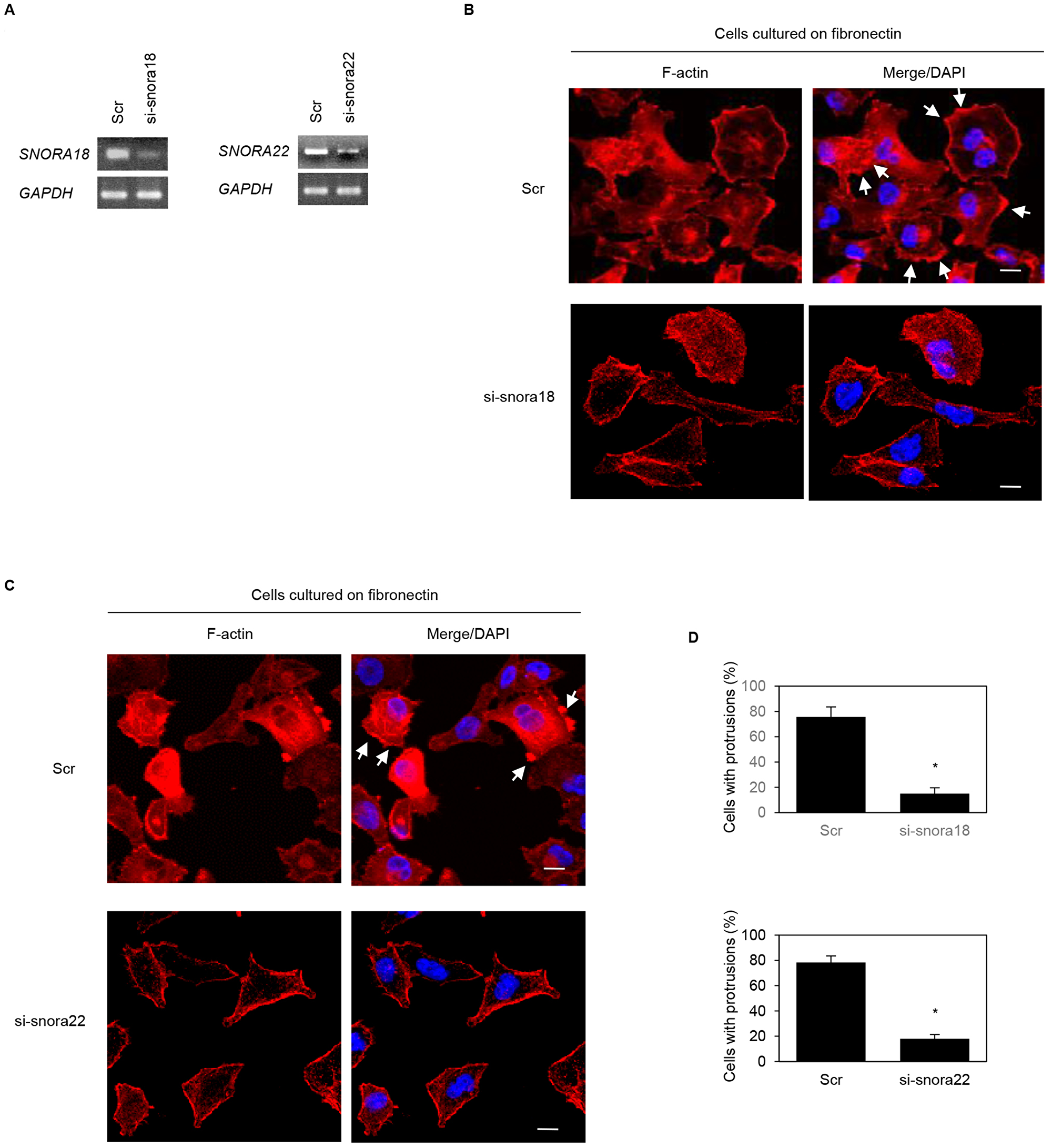 Roles of KHSRP-bound snoRNAs in forming cell protrusions in PANC-1 cells.
