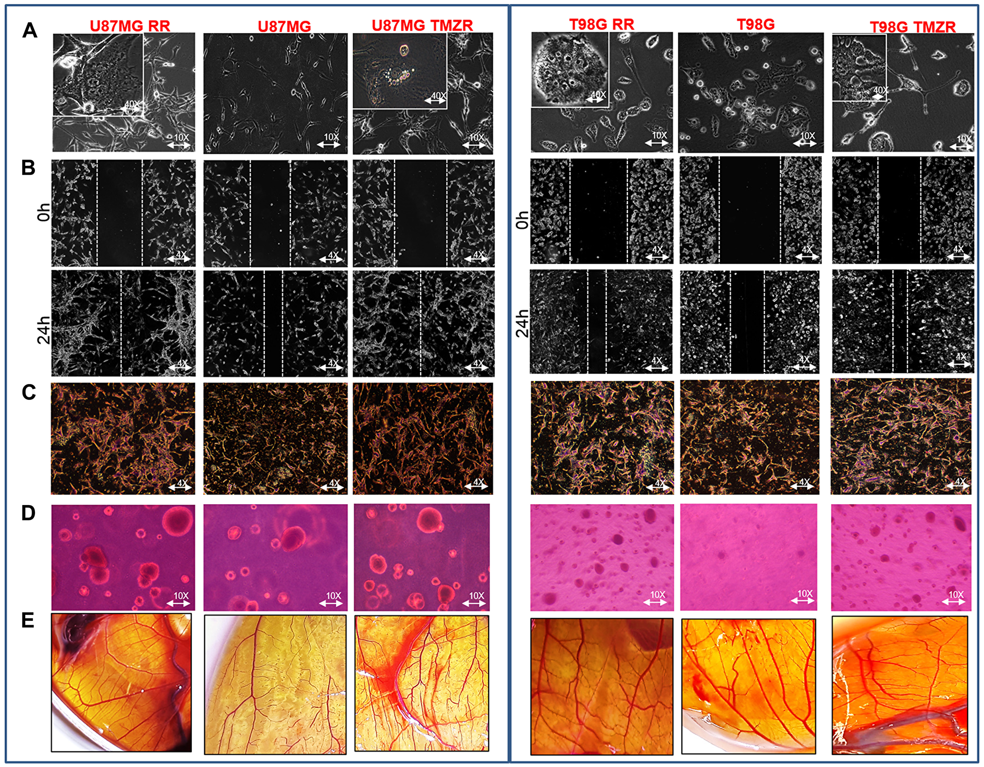 Characterization of radiation-resistant and TMZ-resistant (RR/TMZR) GBM cells.