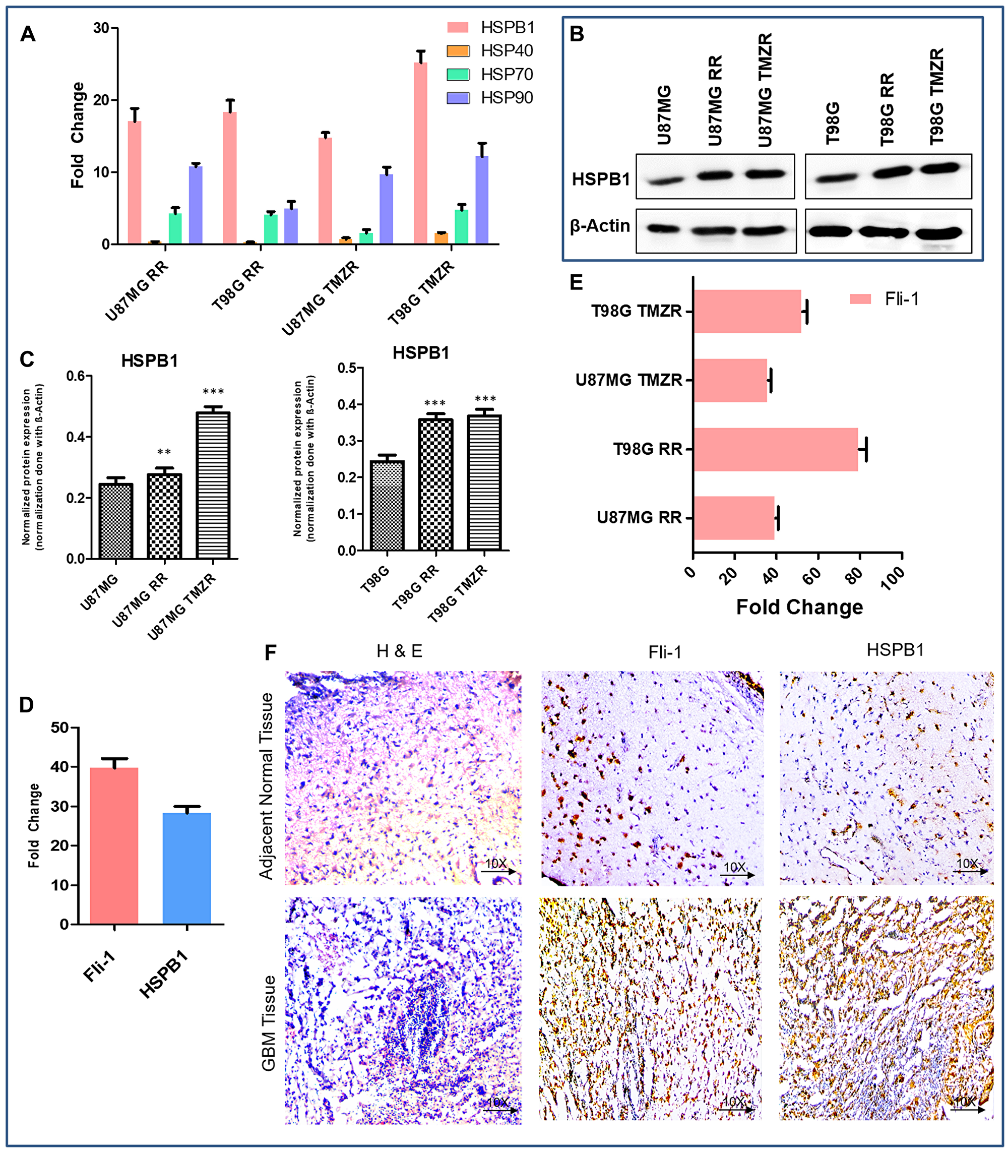 Comparative expression pattern of different HSPs and Fli-1 in GBM.
