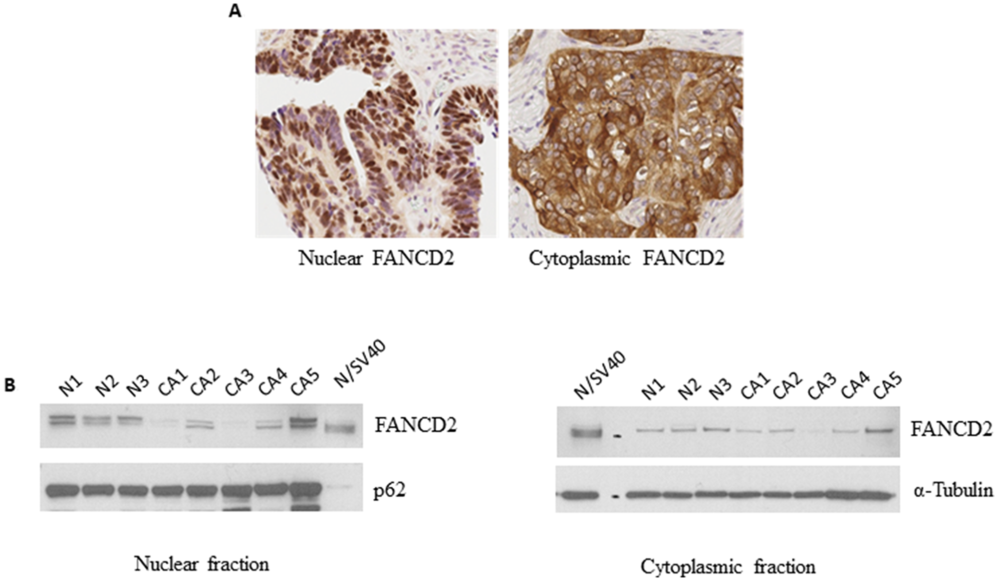 FANCD2 is present in the nucleus as well as the cytoplasm.