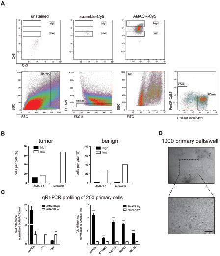 AMACR detection using SmartFlares in human prostate cancer needle biopsy,