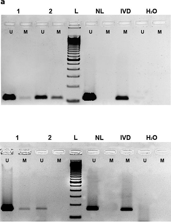 (a) Methylation-specific PCR (MSP) of EPB41L3 (upper) and TSP-1 (lower) genes.