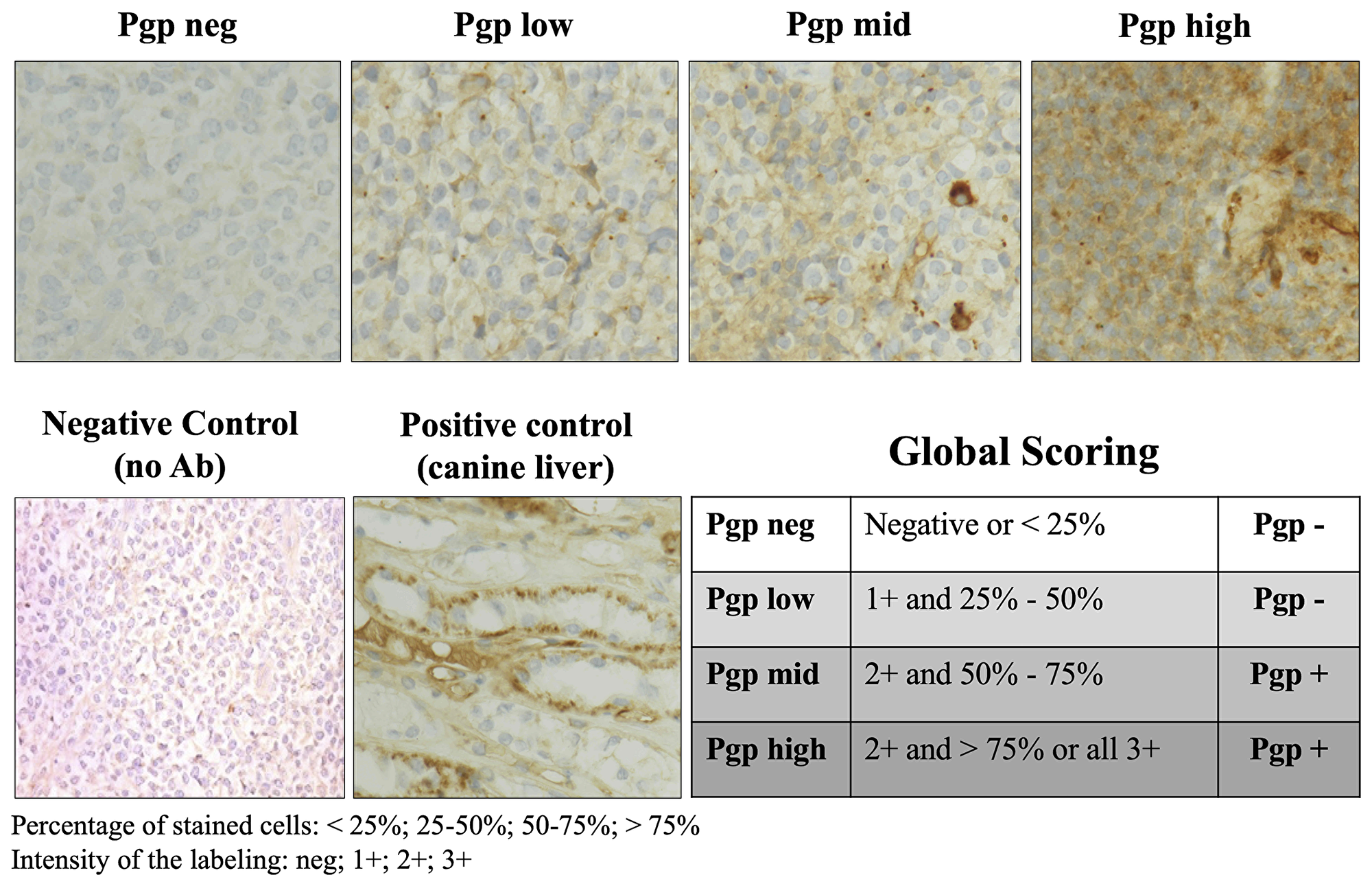 P-glycoprotein expression evaluated by immunohistochemistry in lymph node tumor cells.