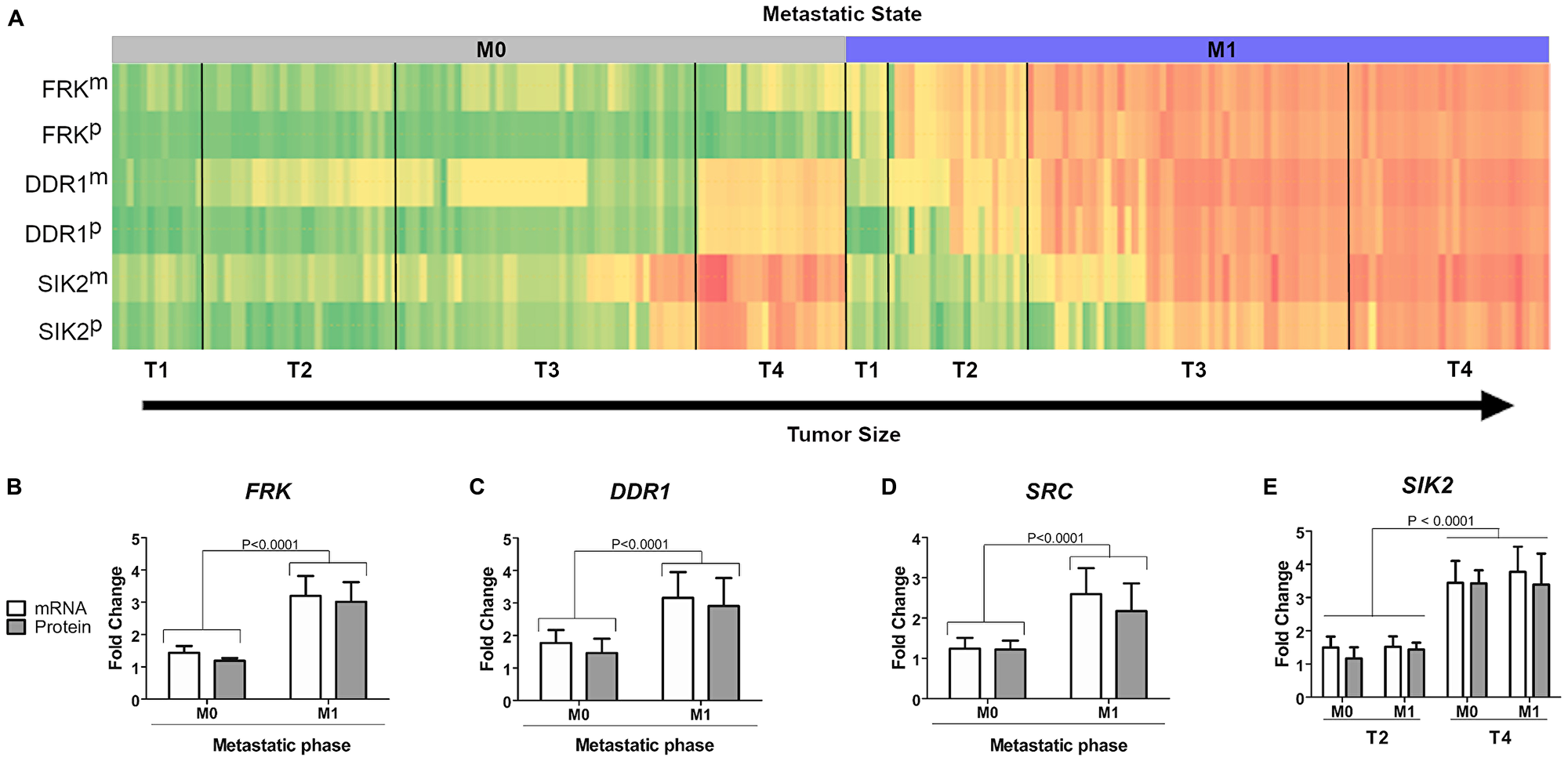 Correlation between kinase expression levels and tumor stage in patient samples.