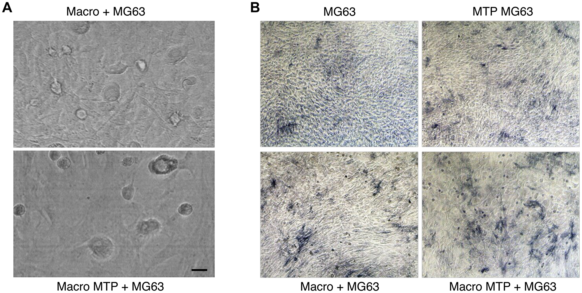 Effects of Mifamurtide (MTP) on MG63 alone and co-cultured with macrophages.