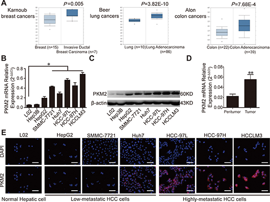 Expression of PKM2 in human cancers and HCC tissues/cell lines.