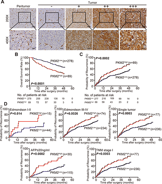 PKM2 expression and prognostic value in HCC tissue (training cohort, n = 367).