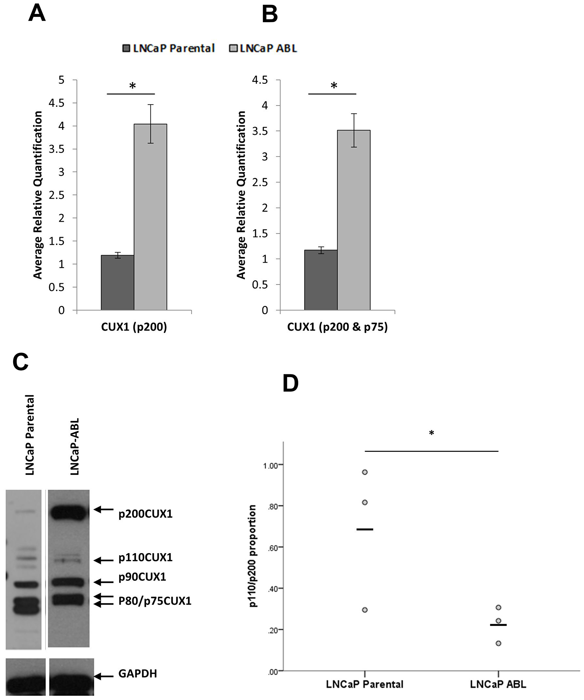 CUX1 is differentially expressed in castrate resistant prostate cancer.
