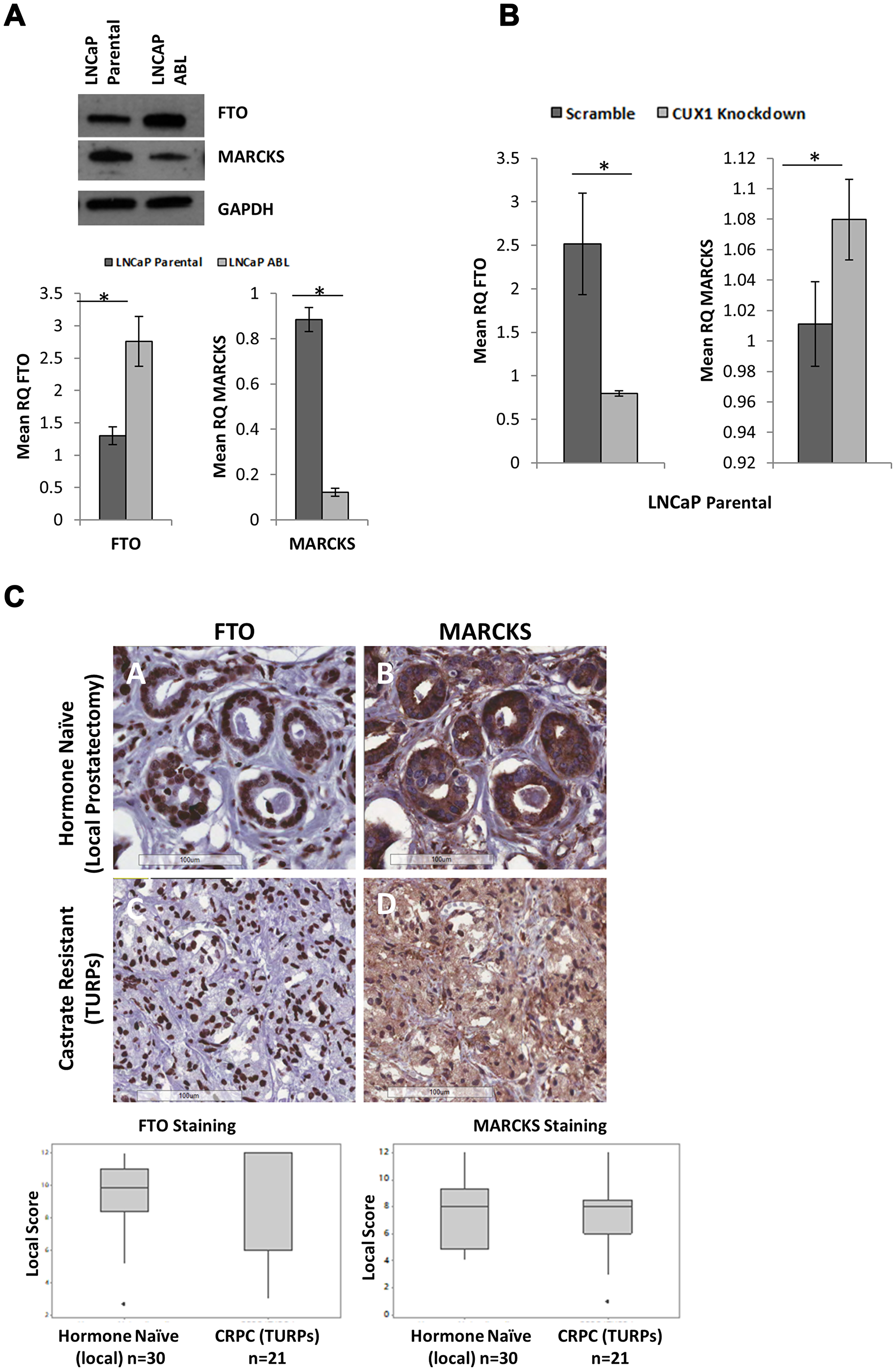 Surrogate Markers of CUX1 are not differentially expressed in hormone naïve and castrate resistant prostate cancer.