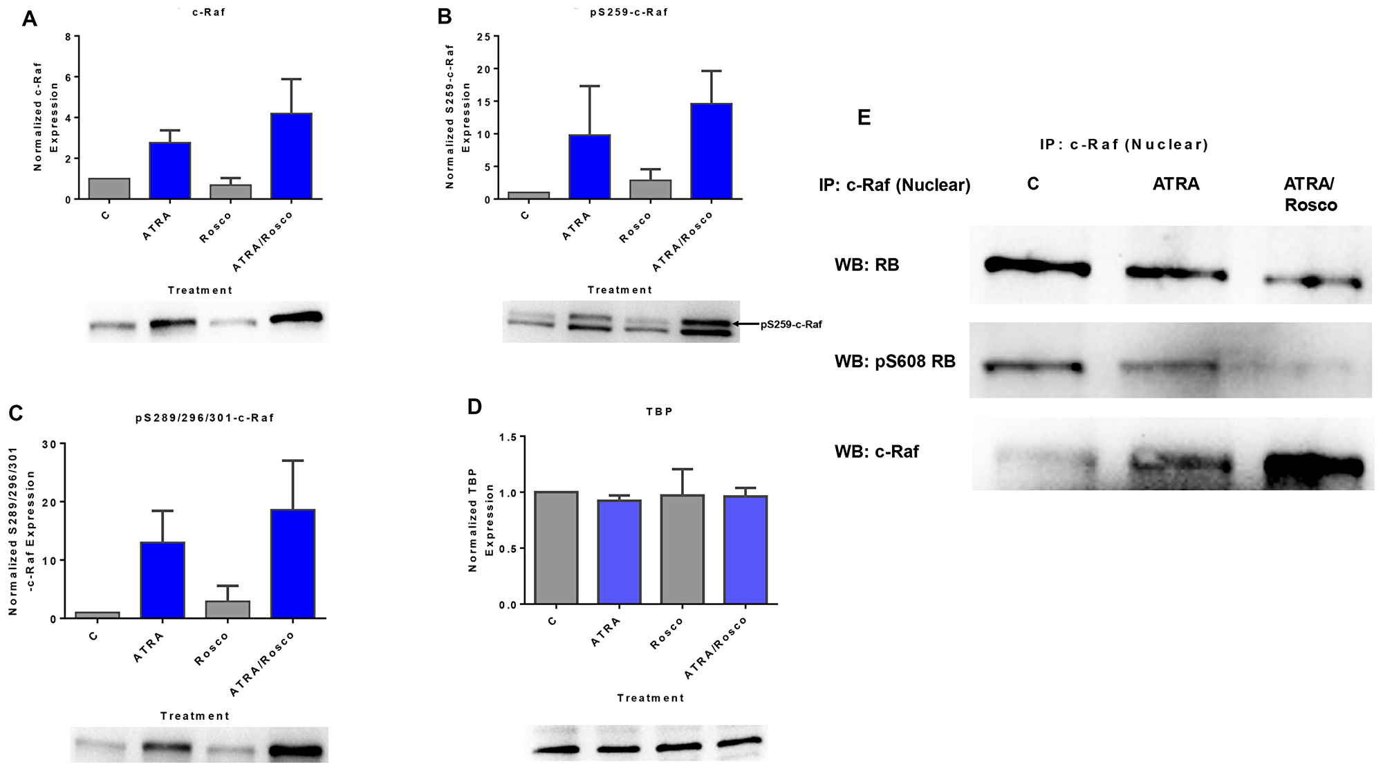 Roscovitine enhances the amount of ATRA-induced phosphorylated c-Raf and phosphorylated c-Raf in the nucleus modulates the RB protein functions.