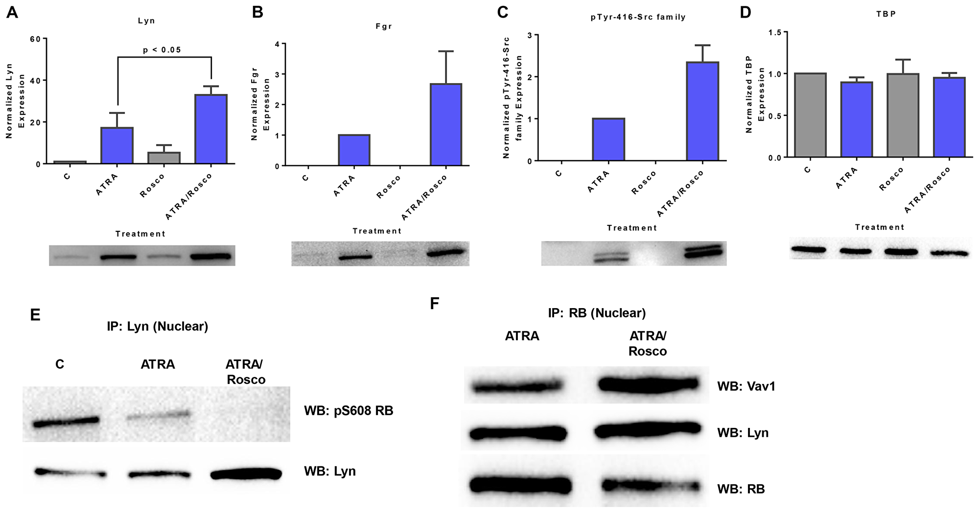 Roscovitine enhances the expression of ATRA-induced enrichment of nuclear Src-family kinase members.