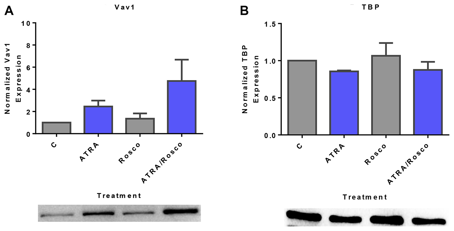 Roscovitine increases ATRA-induced nuclear expression of Vav1.