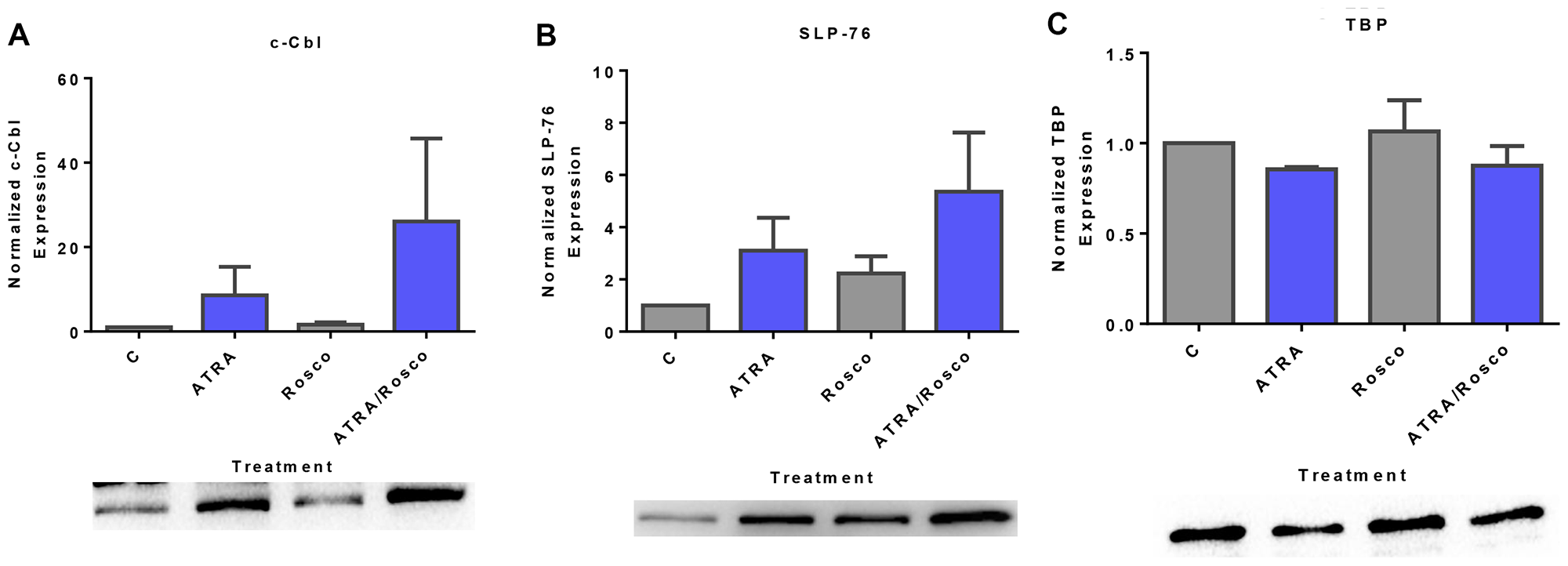 Expression of adaptor proteins (c-Cbl, SLP-76) in the nucleus is enhanced by ATRA and roscovitine.