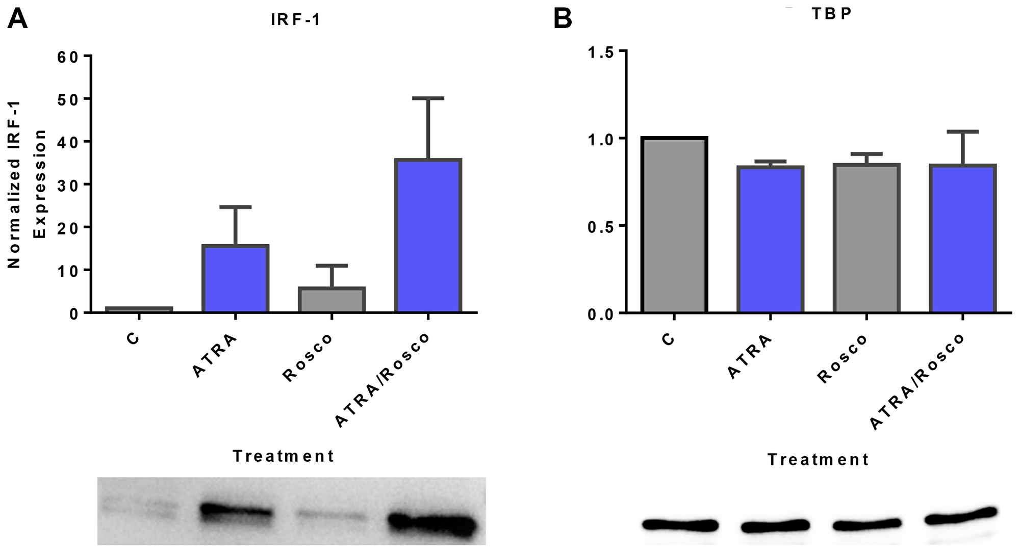 Roscovitine enhances ATRA-induced nuclear enrichment of IRF-1.