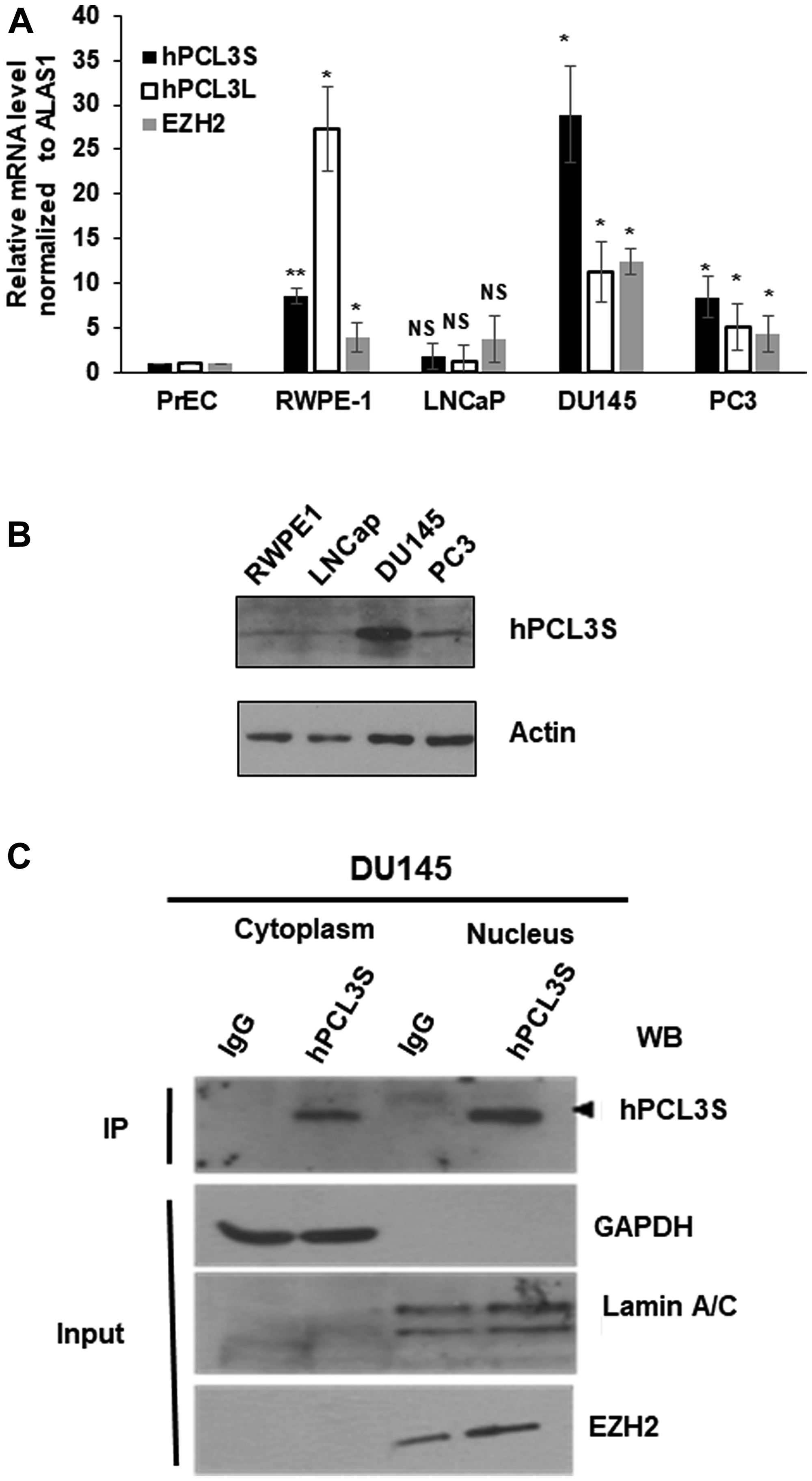 hPCL3S expression is specifically elevated in androgeno-negative prostate cancer cells, in vitro.