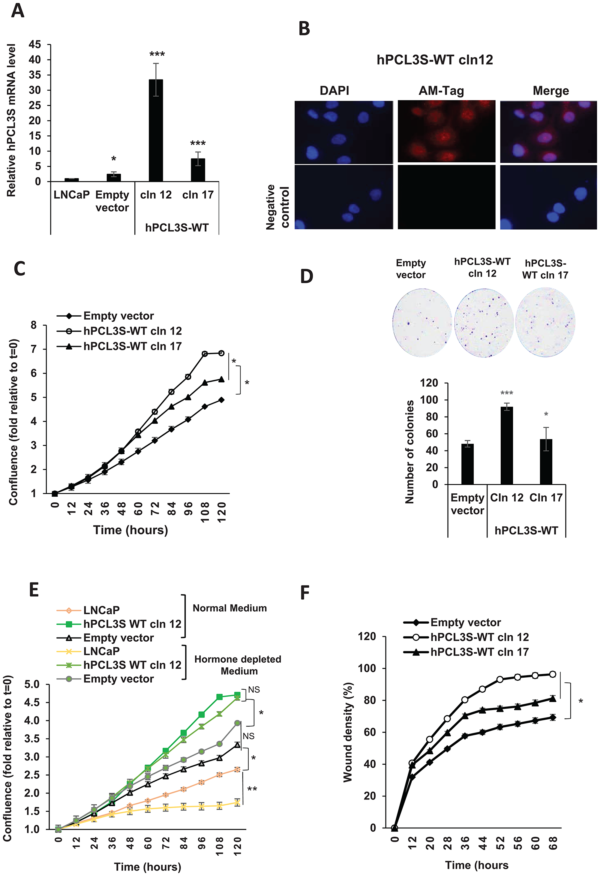 hPCL3S promotes proliferation and migration in the androgeno-dependent human prostate cancer cells, LNCaP.