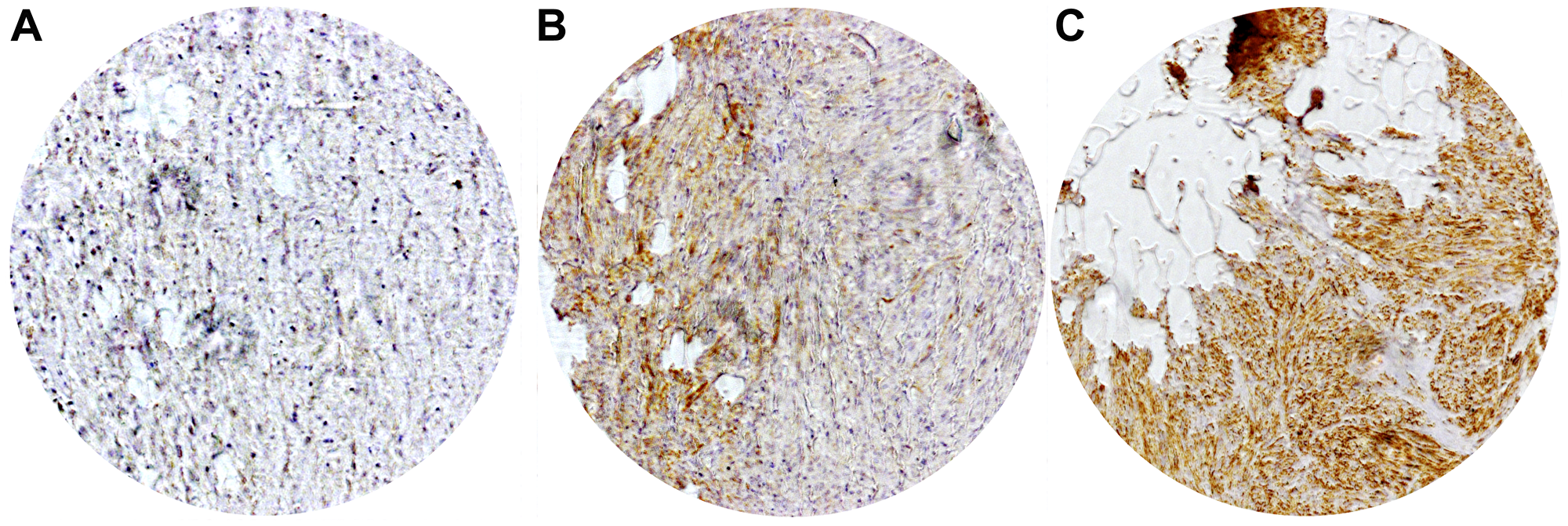 Representative immunohistochemical staining of local CHL1 expressions in GIST.