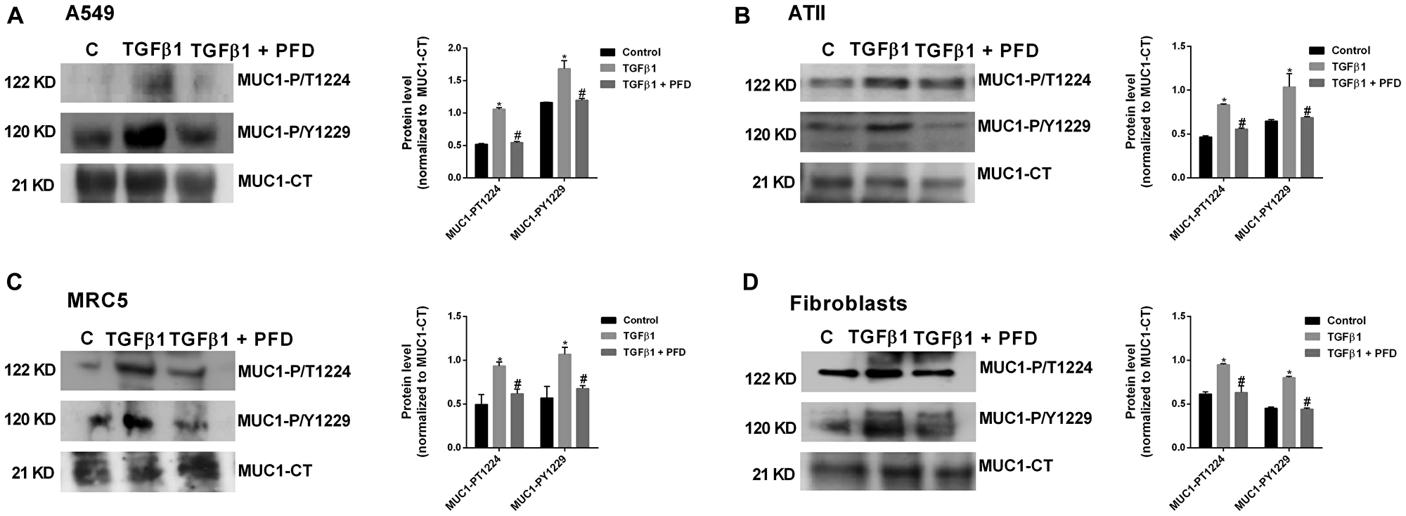 Pirfenidone (PFD) supresses the TGF-β1-induced MUC1-cytoplasmic tail (CT) bioactivation: ATII cells were isolated from the lungs of control subjects, and lung fibroblasts were isolated from the lungs of IPF patients.