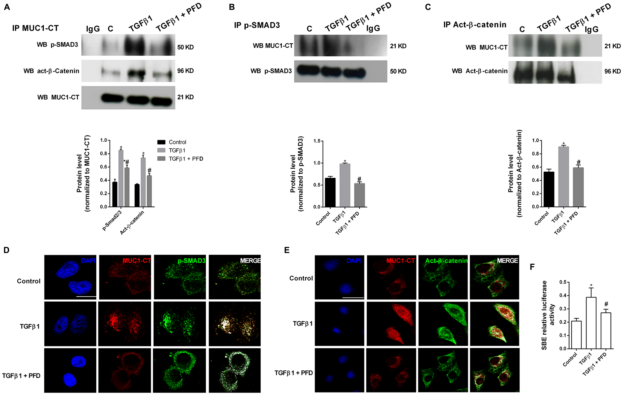 Pirfenidone (PFD) inhibits MUC1-CT co-localization with phospho (p)-Smad3 and active (act)-β-catenin in the nuclei of alveolar epithelial type II (ATII) cells stimulated with TGFβ1.