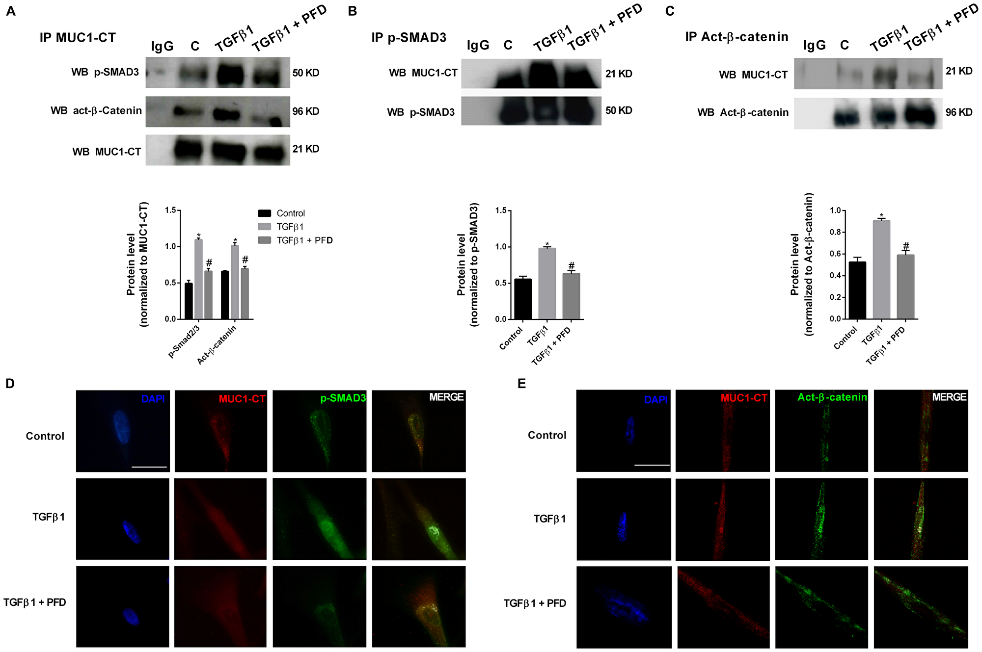 Pirfenidone (PFD) inhibits MUC1-CT co-localization with pSmad3 and active-β-catenin in the nuclei of lung fibroblasts stimulated with TGFβ1.