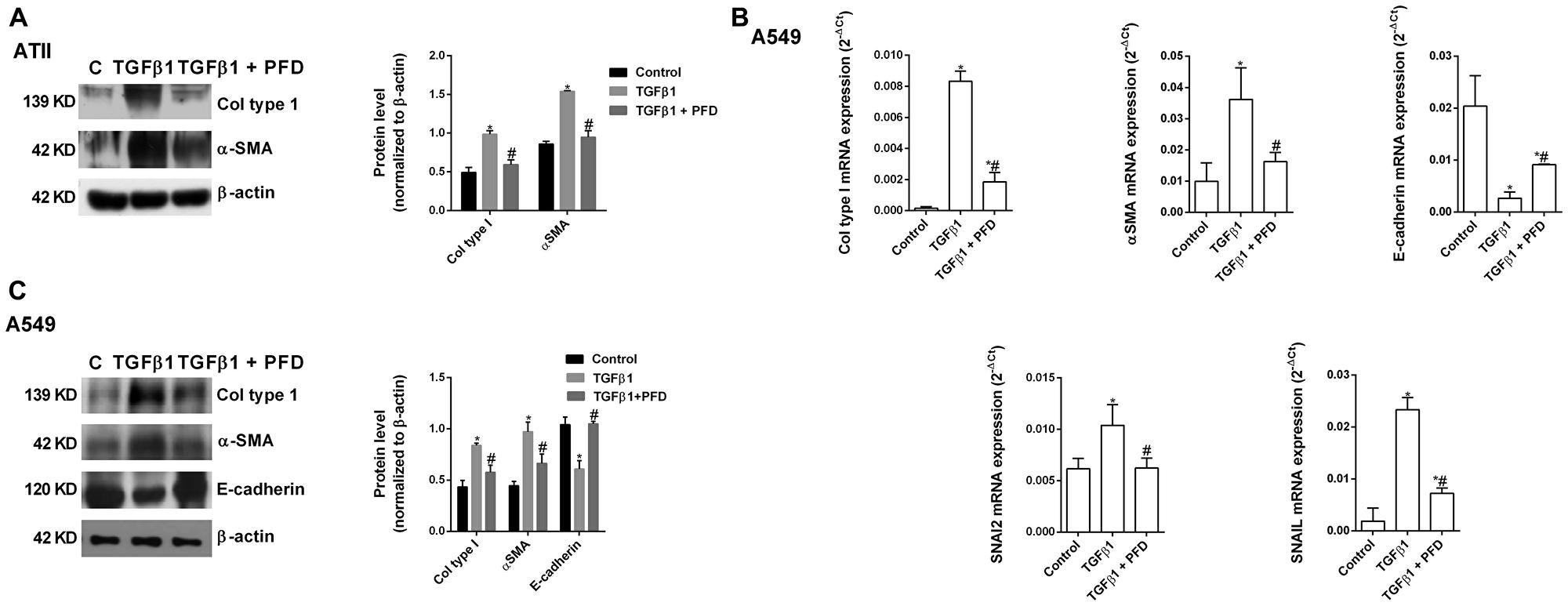 Pirfenidone (PFD) inhibits the TGF-β1-induced alveolar type II (ATII) to mesenchymal transition.