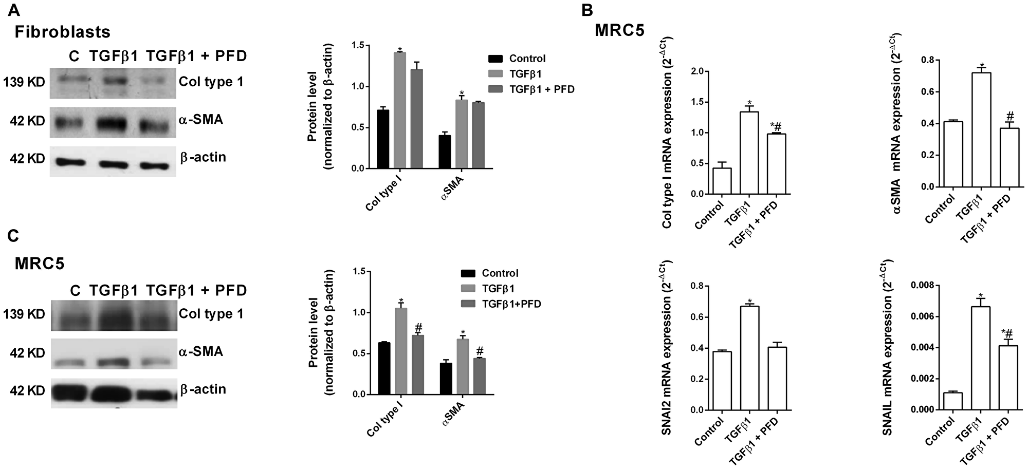 Pirfenidone (PFD) inhibits the TGF-β1-induced fibroblast to myofibroblast transition.