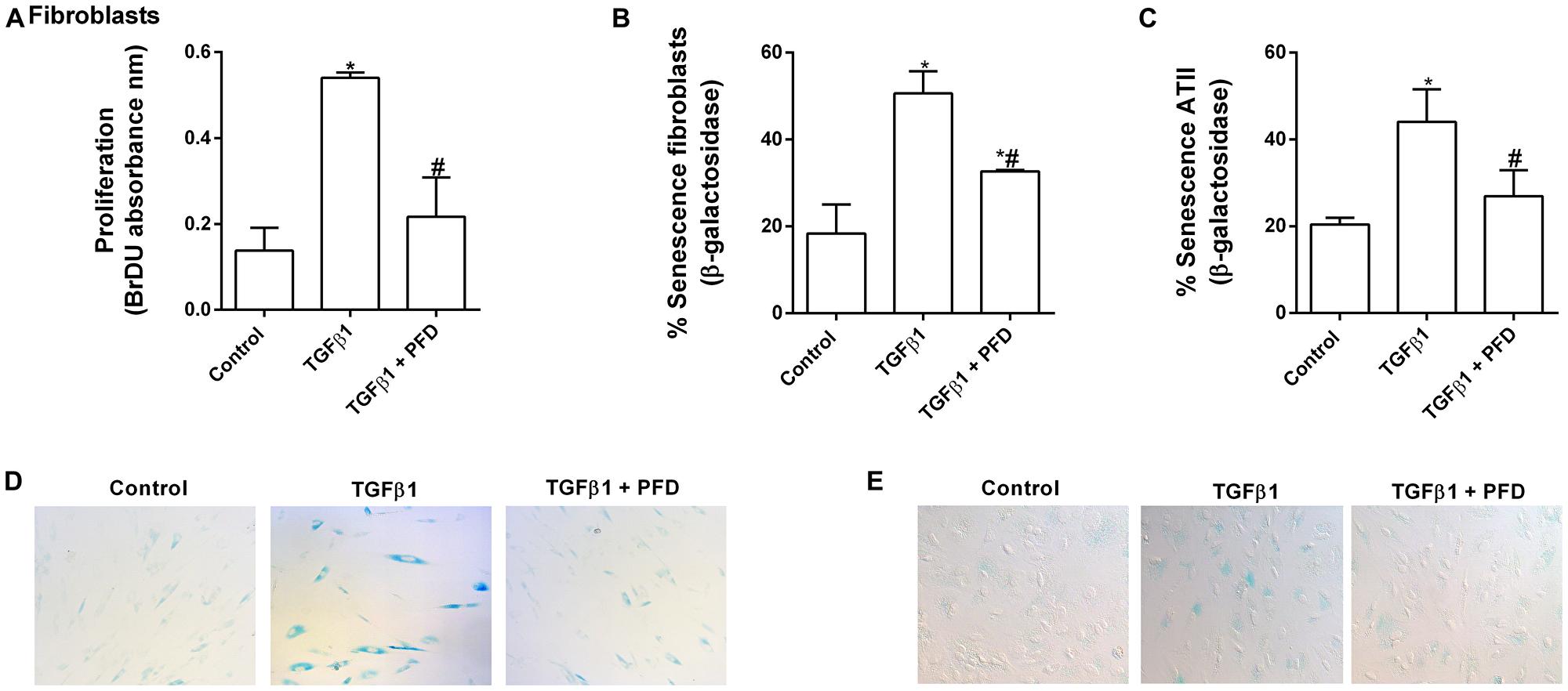 Pirfenidone (PFD) attenuates TGF-β1-induced lung fibroblast proliferation and senescence of epithelial alveolar type II (ATII) cells and fibroblasts.