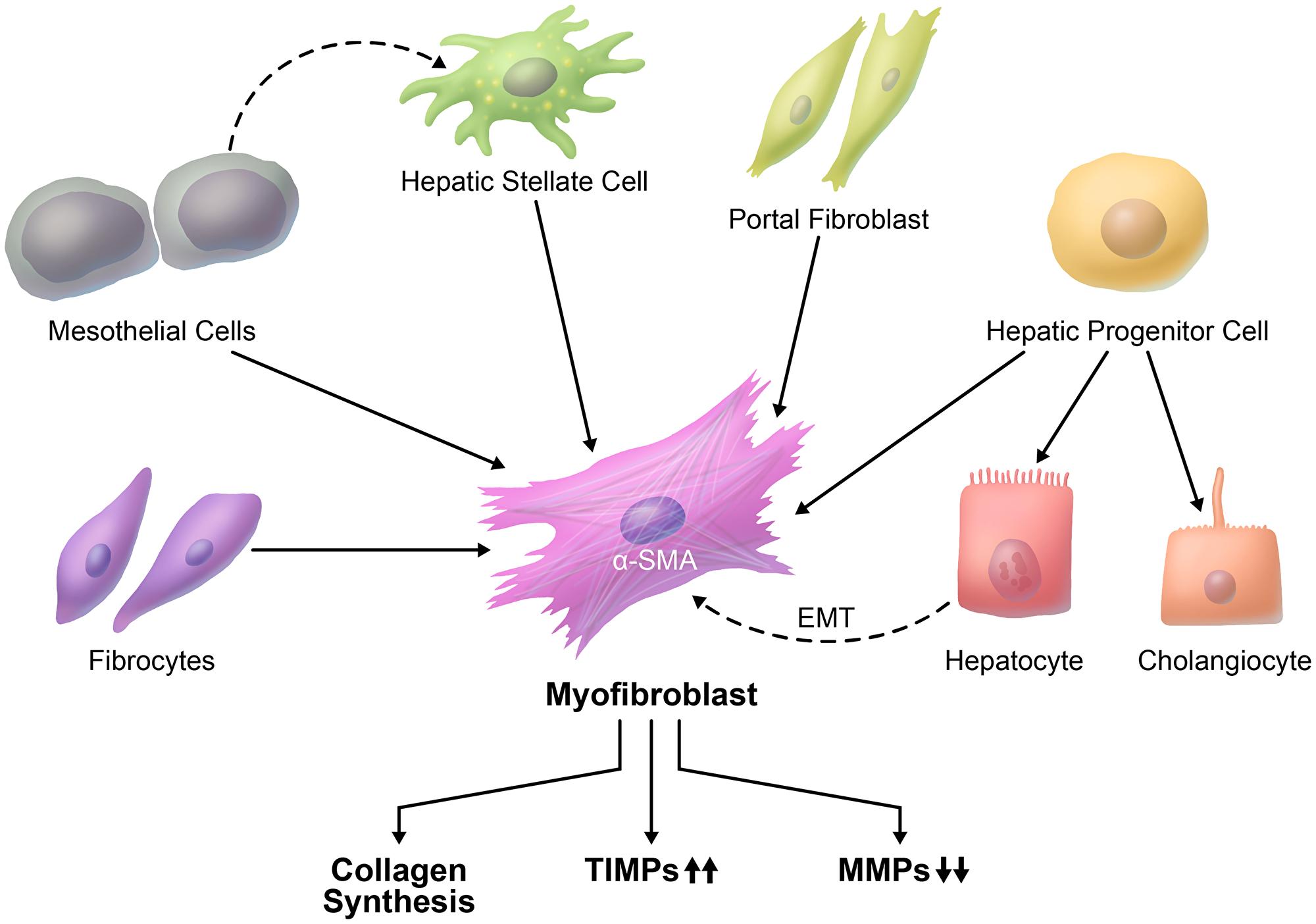 Cellular origin of liver fibrosis.
