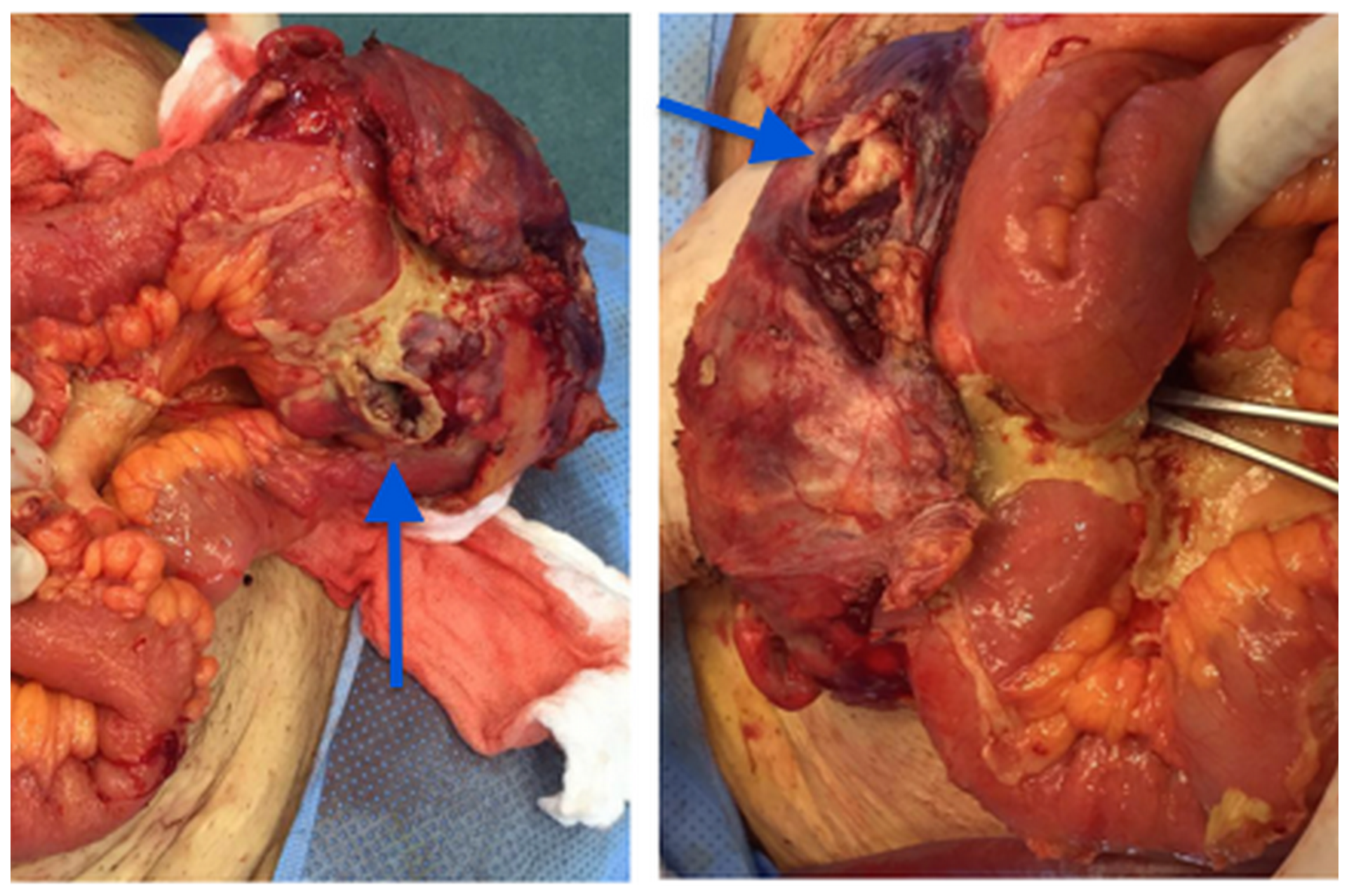 Right inguinal mass in communication with the intestinal loop (arrows).