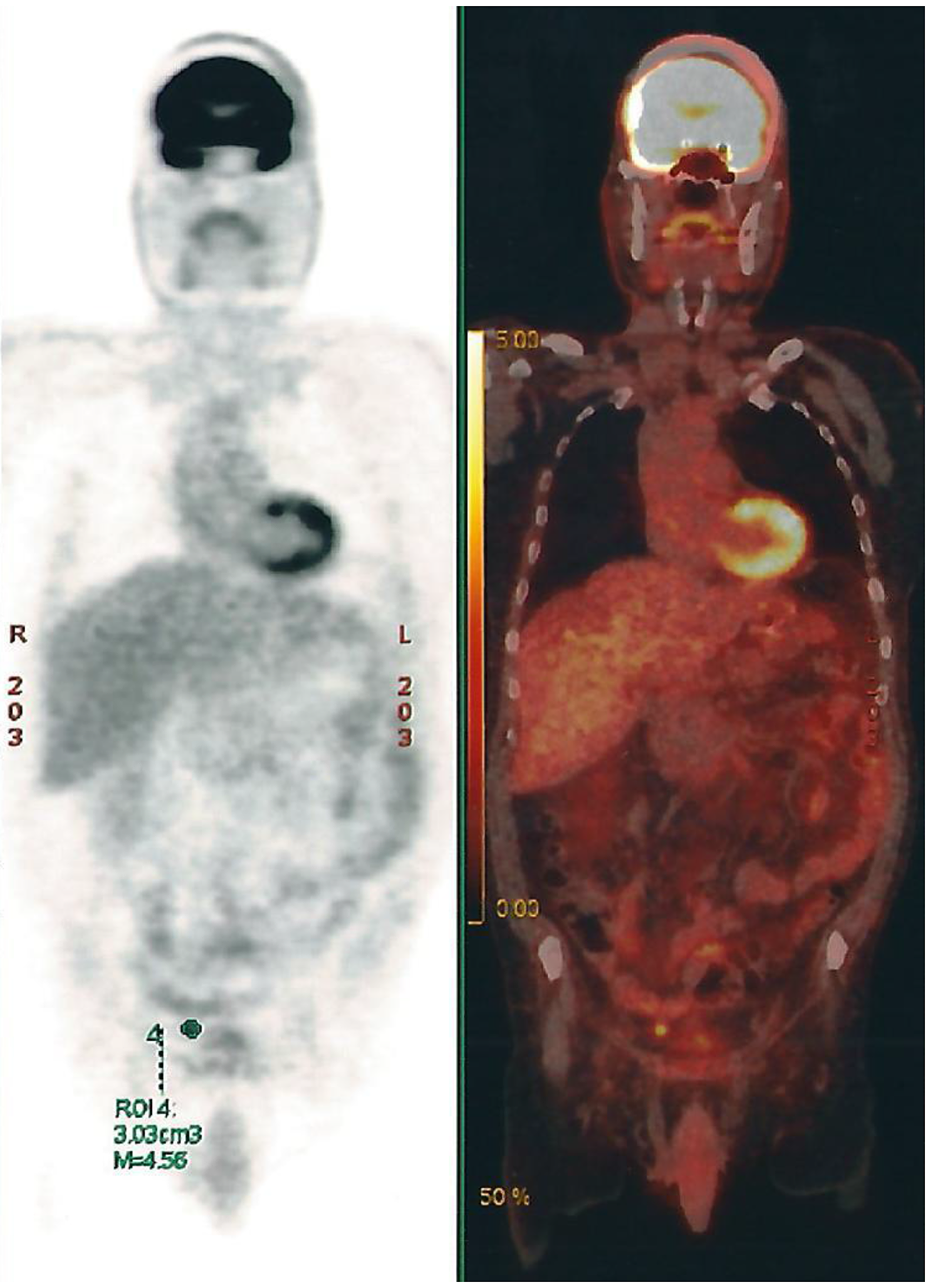 PET-CT Scan showing multiple retroperitoneal, pelvic and abdominal lymph nodes.