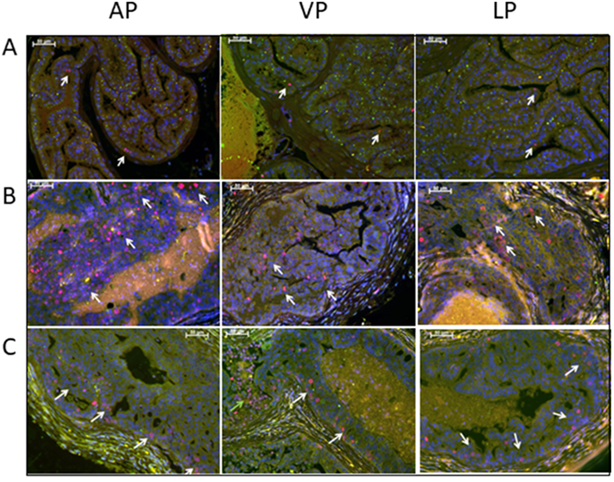 Treatment with low dose Rapatar reduces the number of proliferating cells in the prostate of PCa-prone psPten–/– mice.