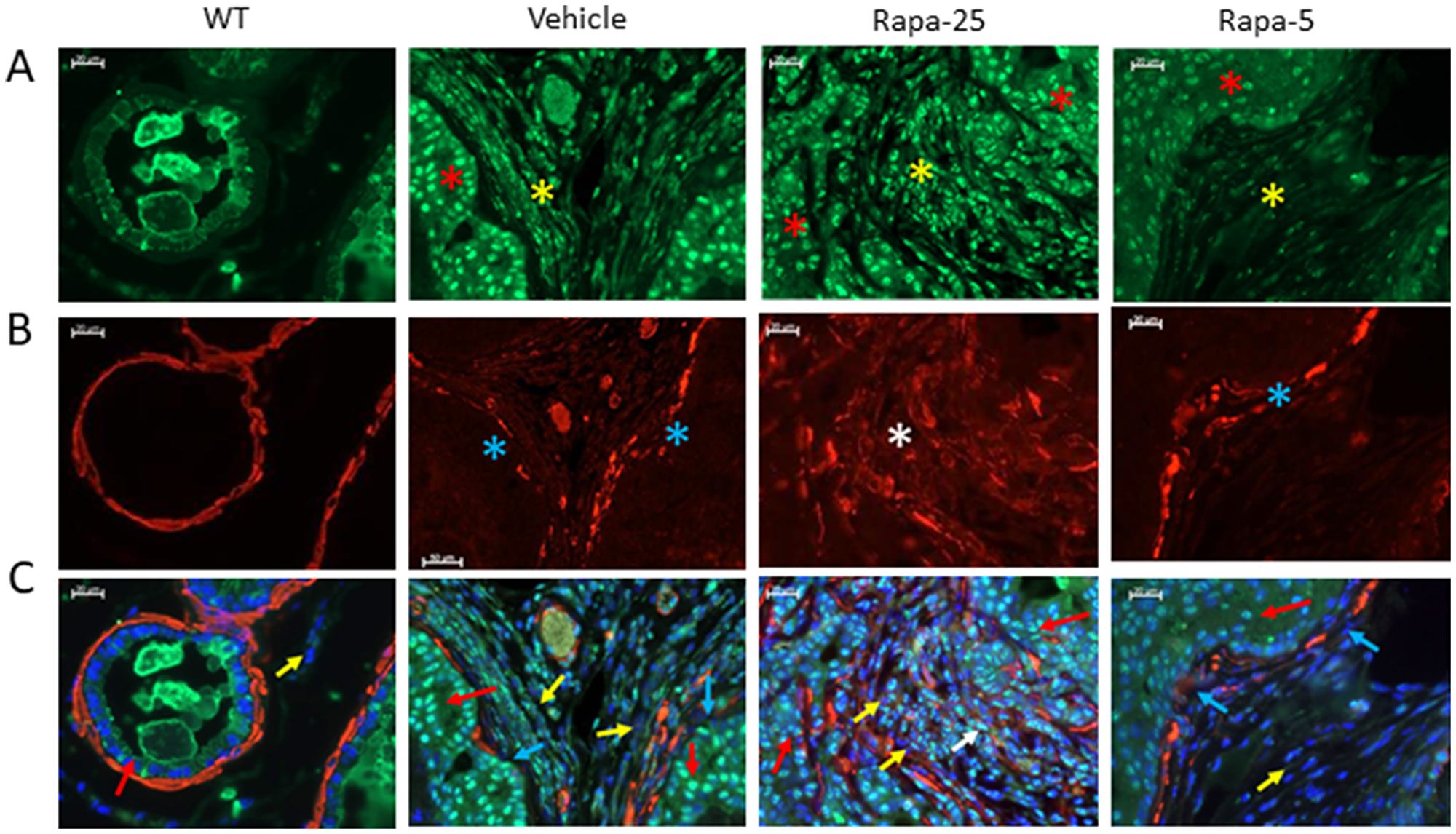 Dysregulation of TGFβ signaling correlates with development of reactive stroma in prostates of psPten–/– mice treated with high dose Rapatar.