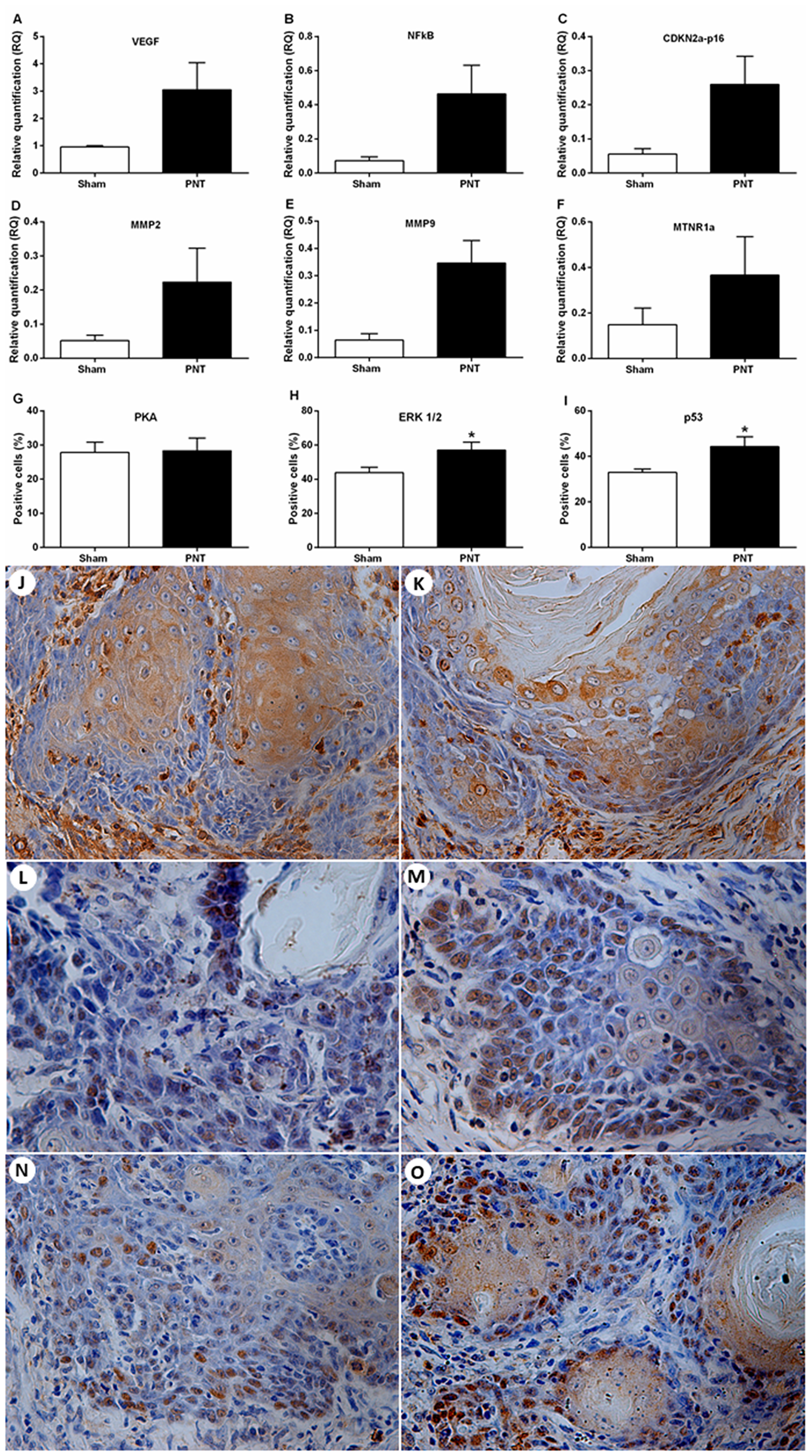 Expression of tumor progression-related genes and melatonin receptors and immunostaining for PKA, ERK1/2 and p53 in the OSCC microenvironment.