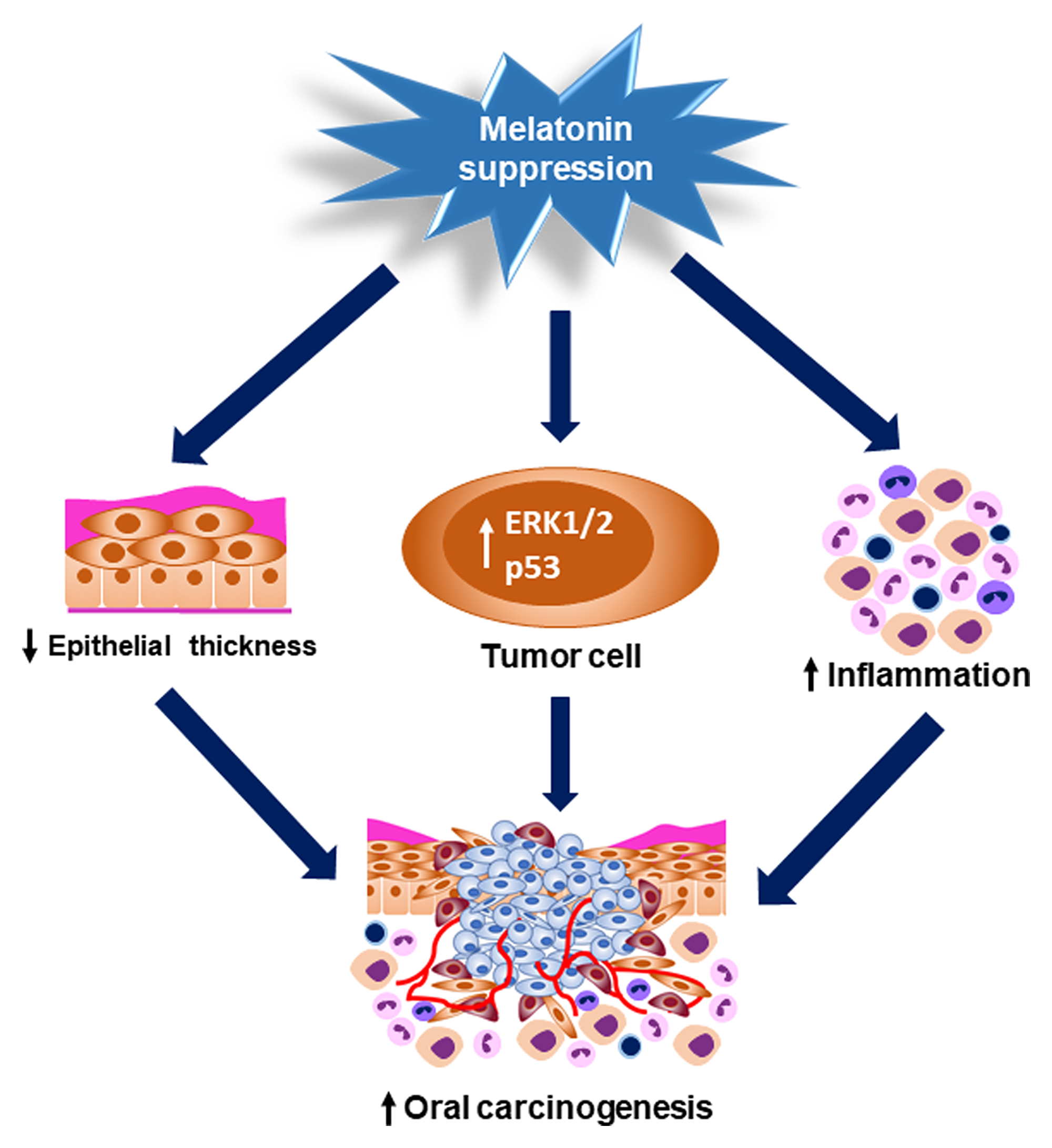 Graphical abstract showing the pinealectomy effects on OSCC occurrence and progression.