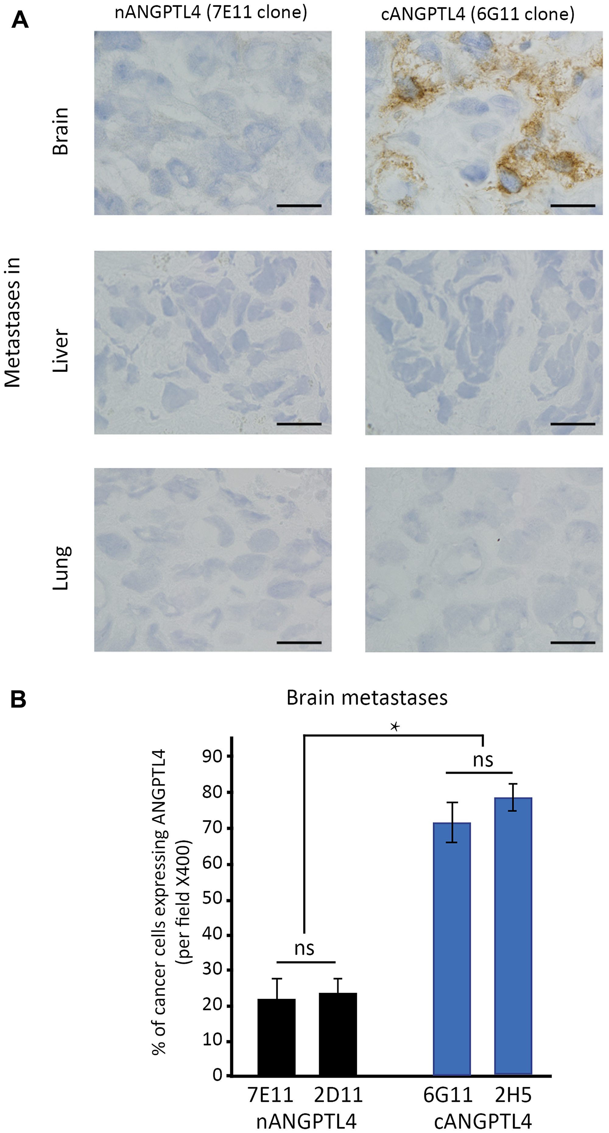 Differential expression of ANGPTL4 fragments in brain metastases of women with breast cancer.