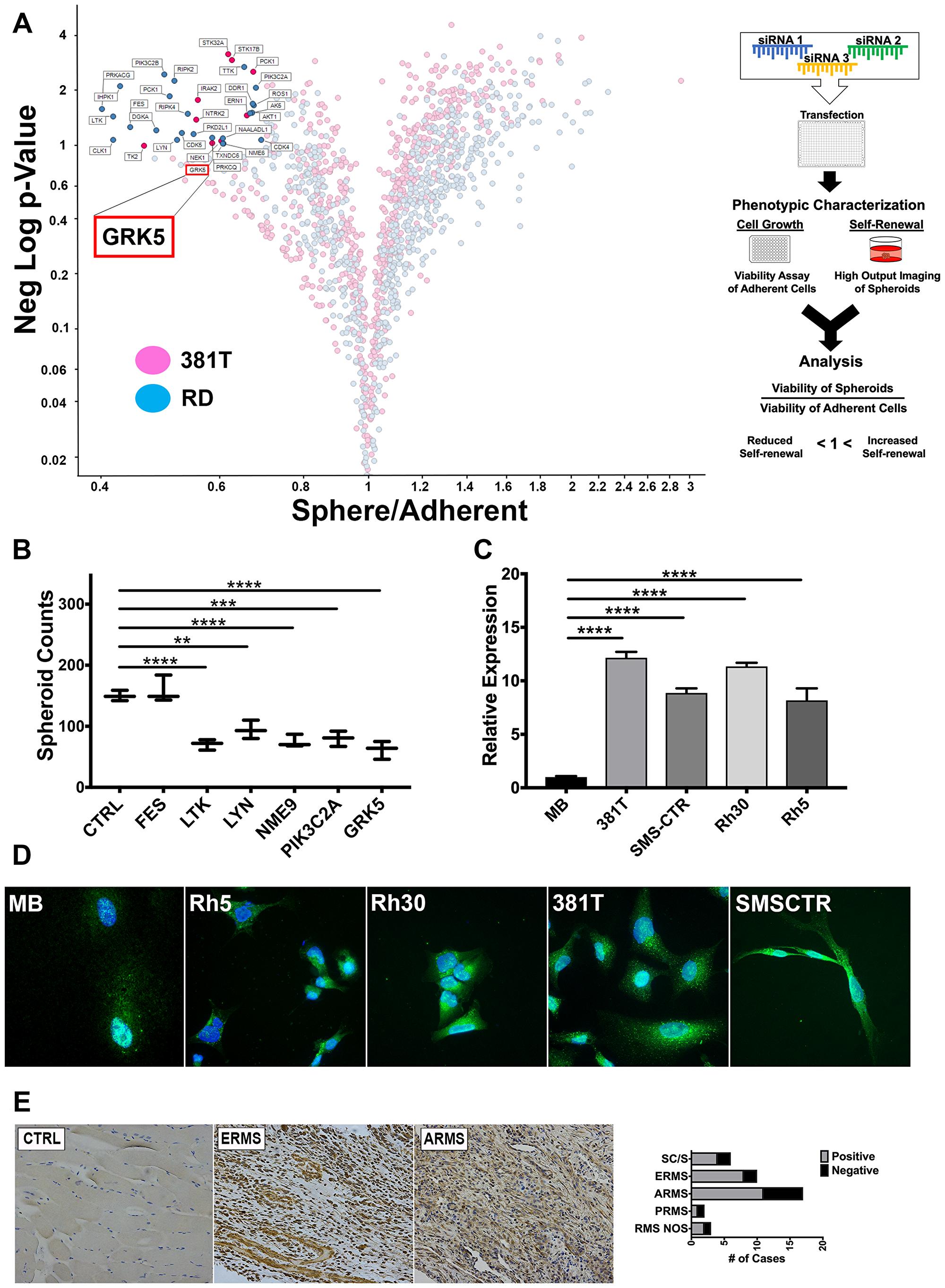An siRNA library screen of the human kinome identifies GRK5 as a novel regulator of ERMS self-renewal.