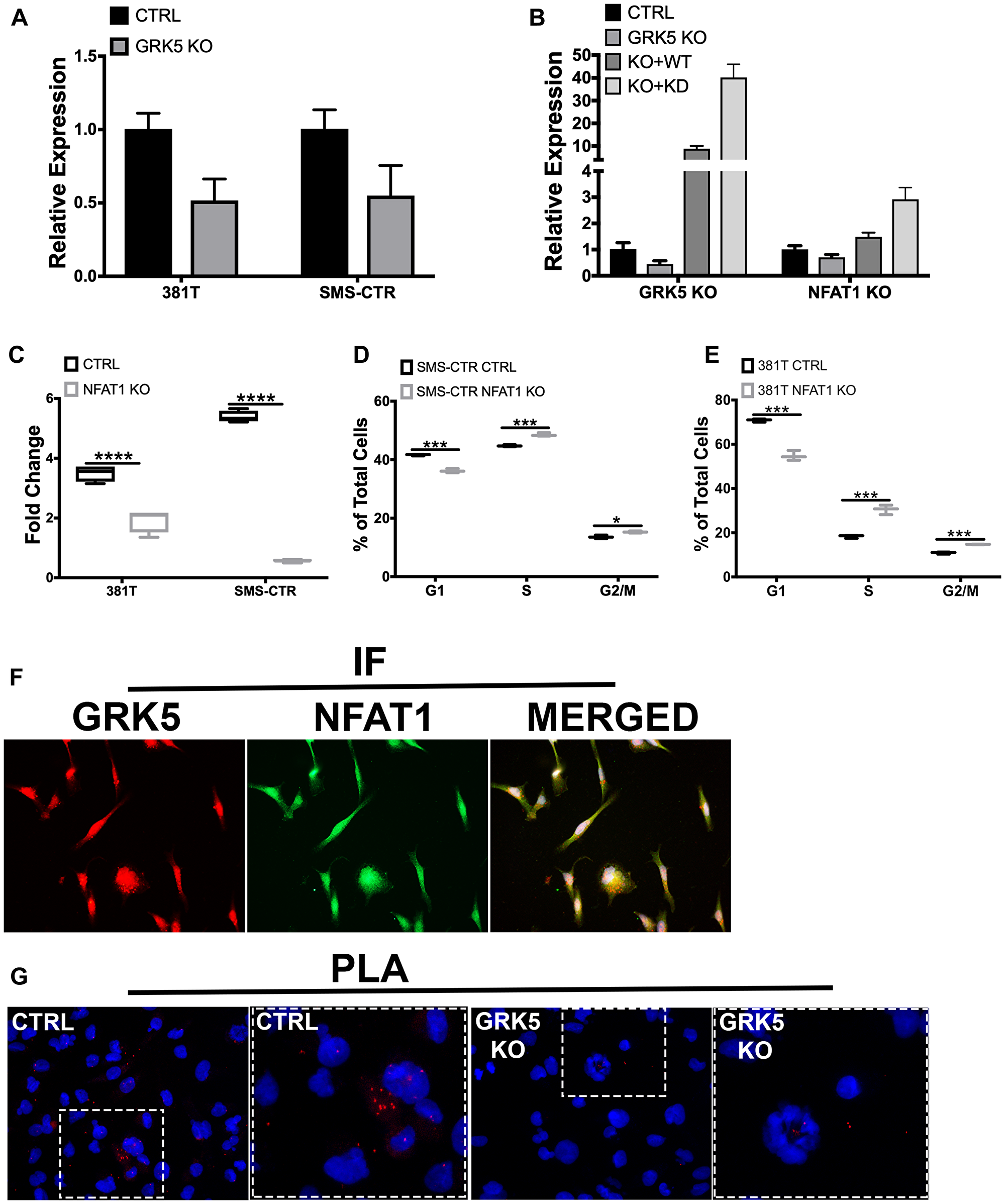 NFAT1 expression is regulated by GRK5 in a kinase-independent manner.