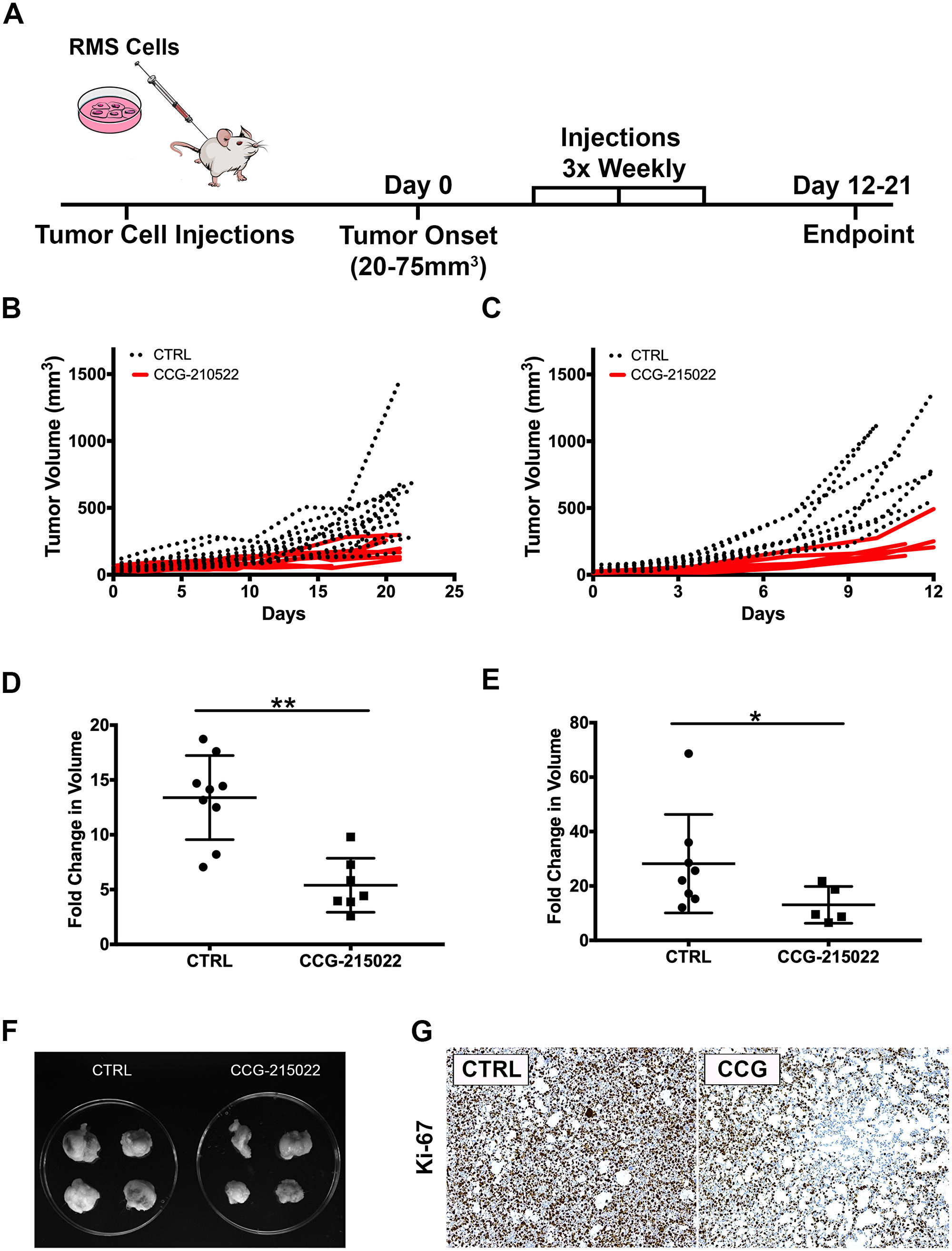 Treatment of RMS tumor with CCG-215022, a GRK5 inhibitor, reduces tumor growth.