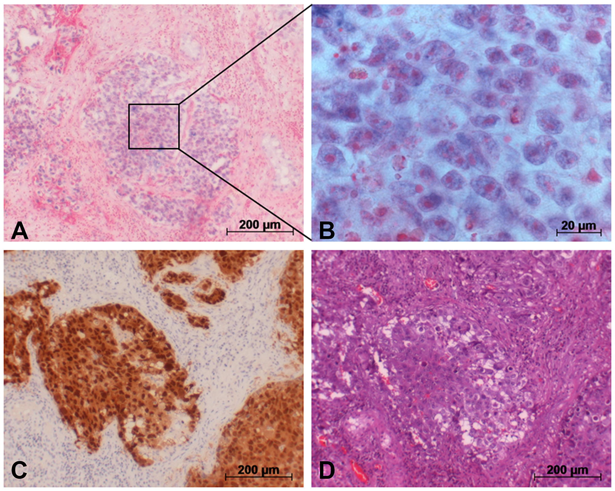 Detection of miR-371a-3p in GCT tumor (EC) via in situ hybridization.