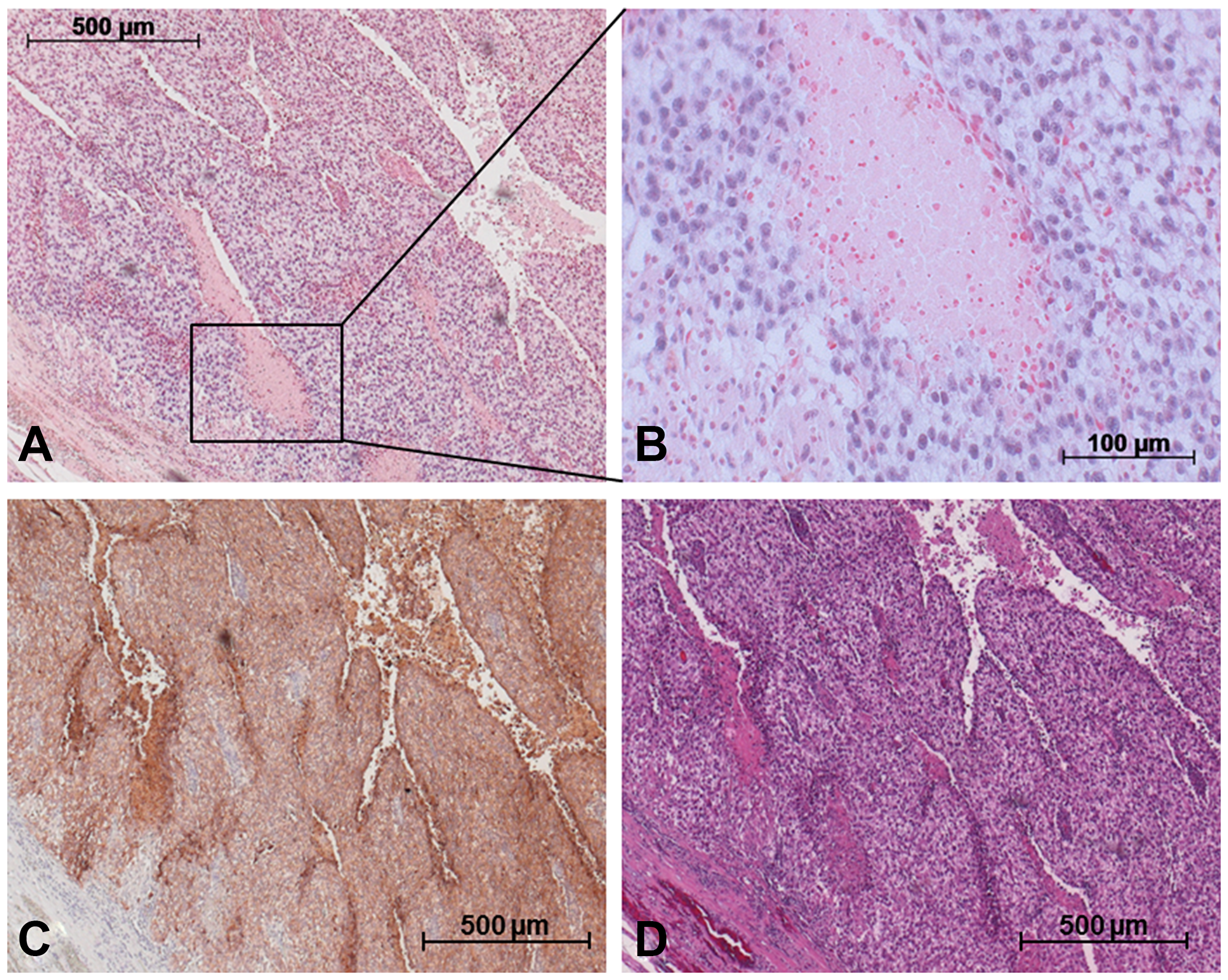 Detection of miR-371a-3p in GCT mixed tumor including SE and YST via in situ hybridization.