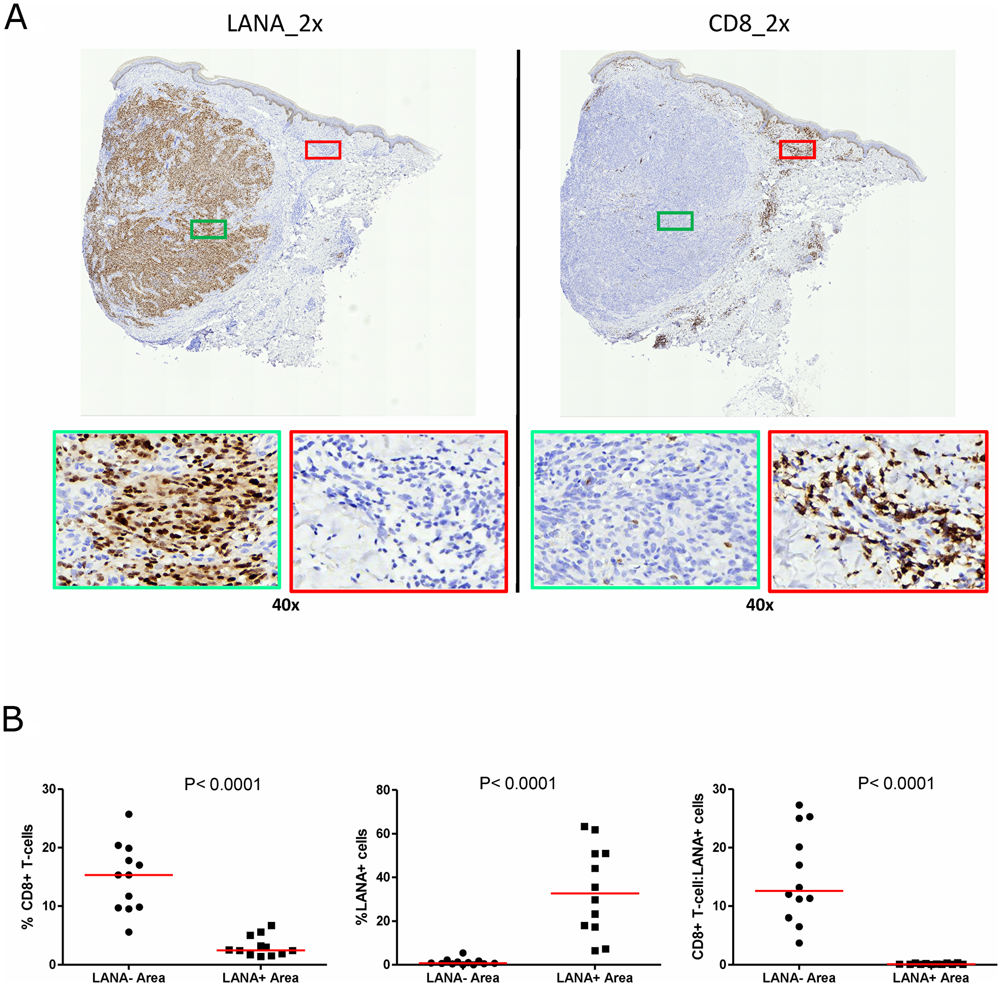 Single-color immunohistochemical staining of adjacent KS tissue sections using mouse anti-LANA and mouse anti-humanCD8 antibodies.